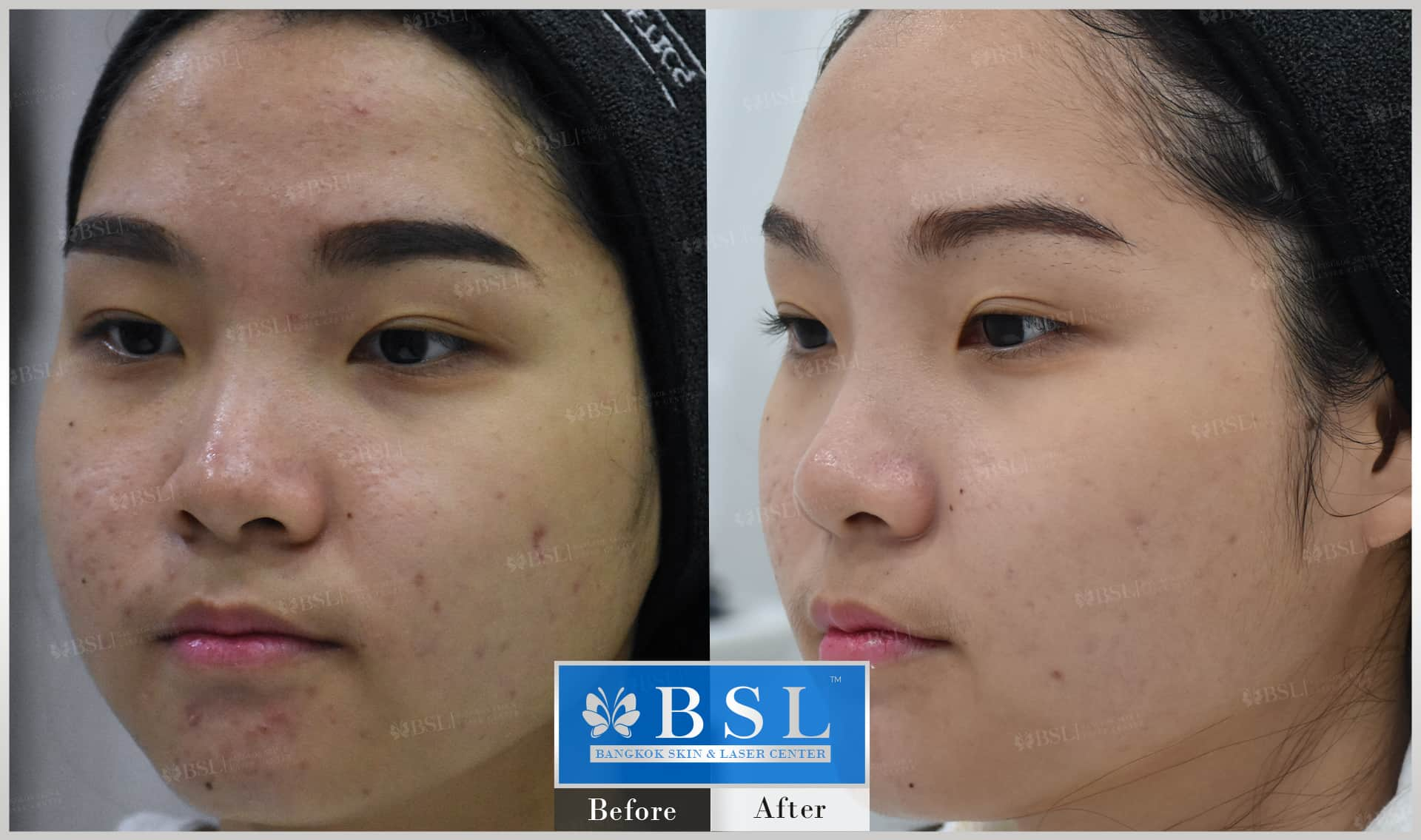 before-after-results-acne-061