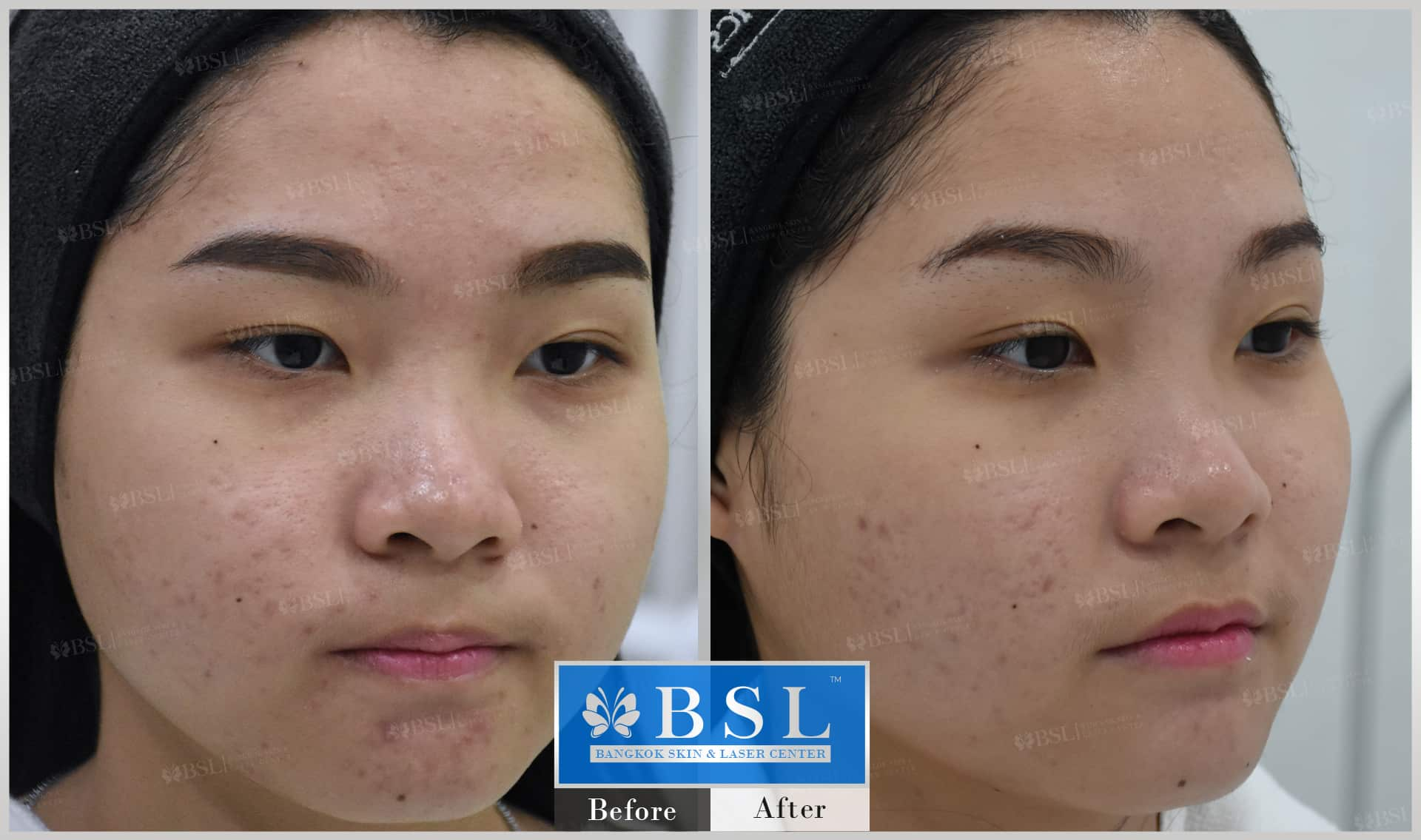 before-after-results-acne-062