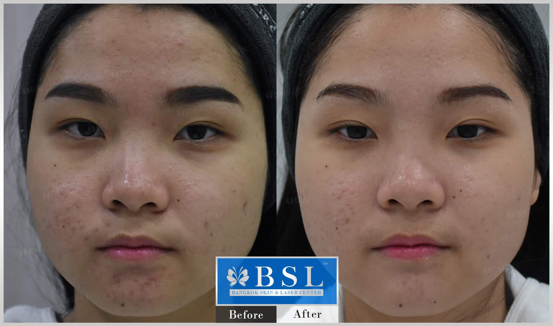 before-after-results-acne-063