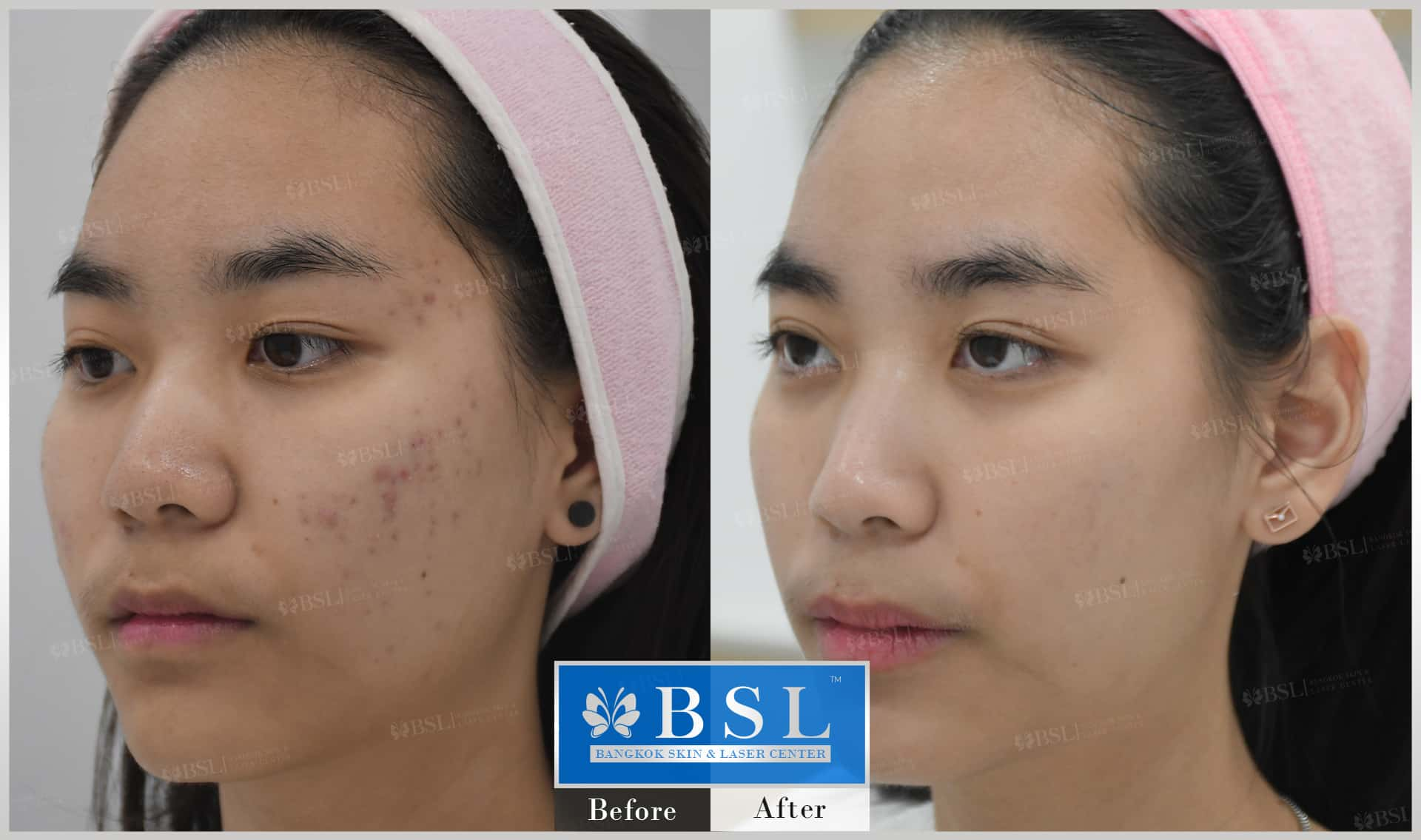 before-after-results-acne-064
