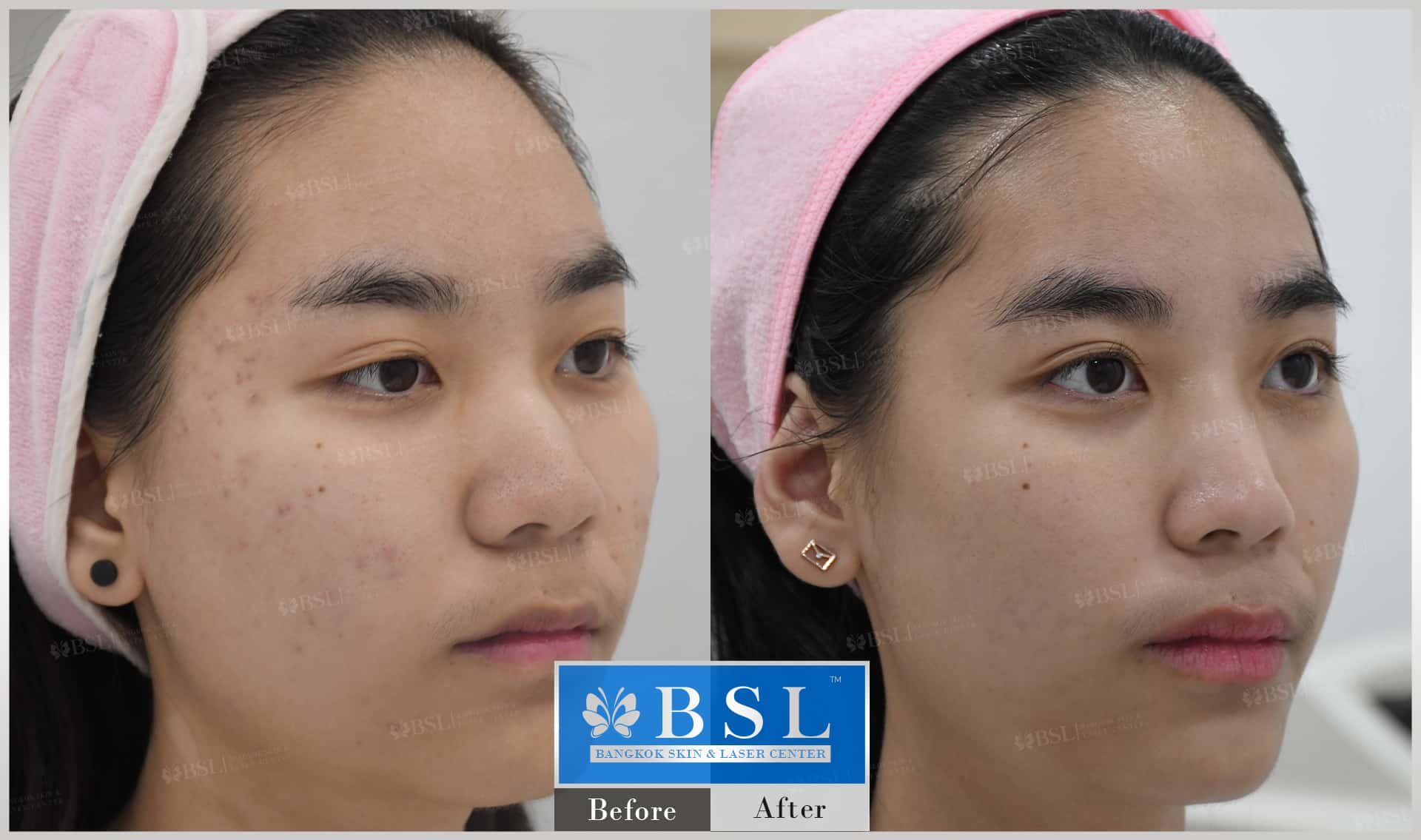 before-after-results-acne-065
