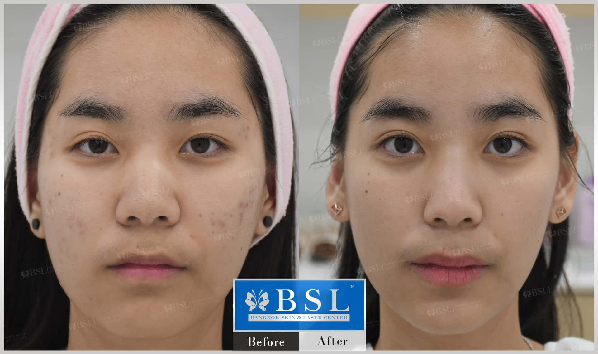 before-after-results-acne-066