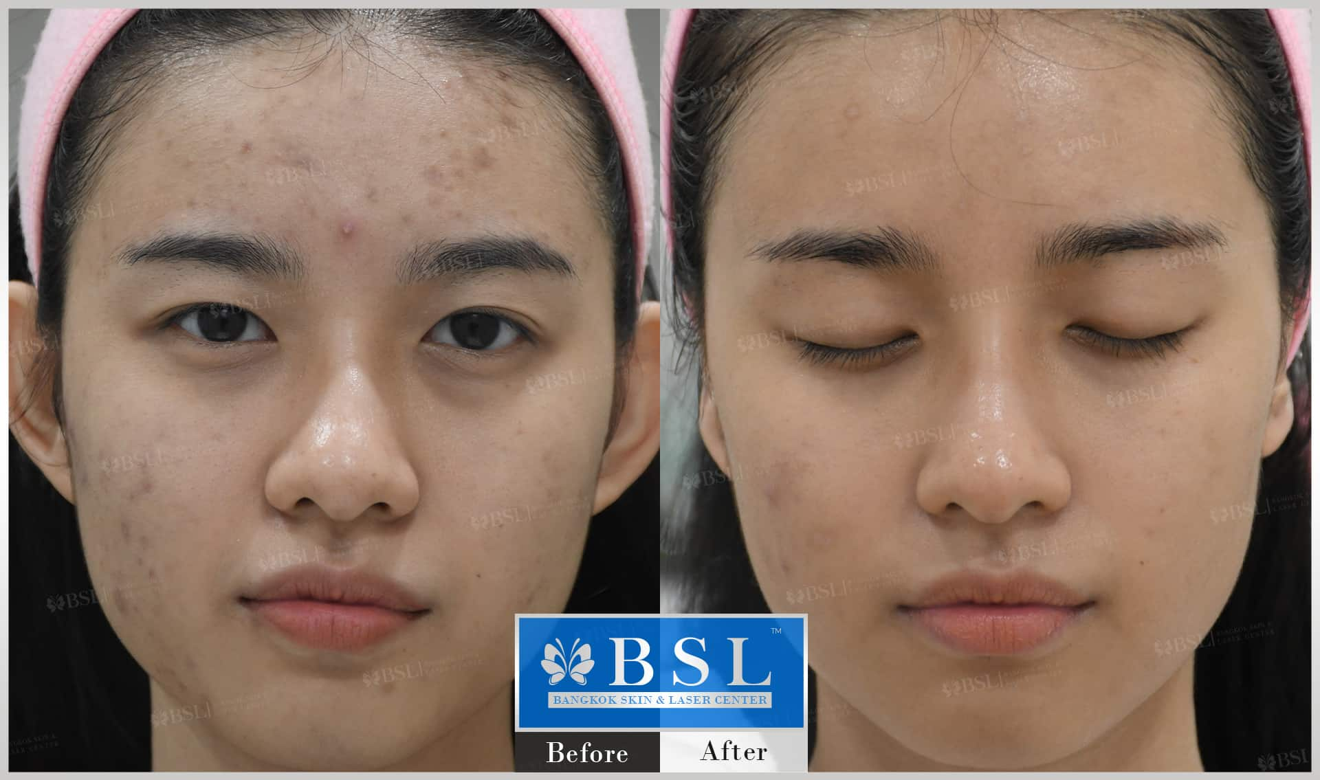 before-after-results-acne-069