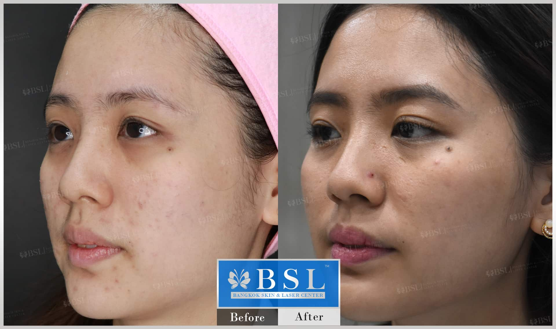 before-after-results-acne-070