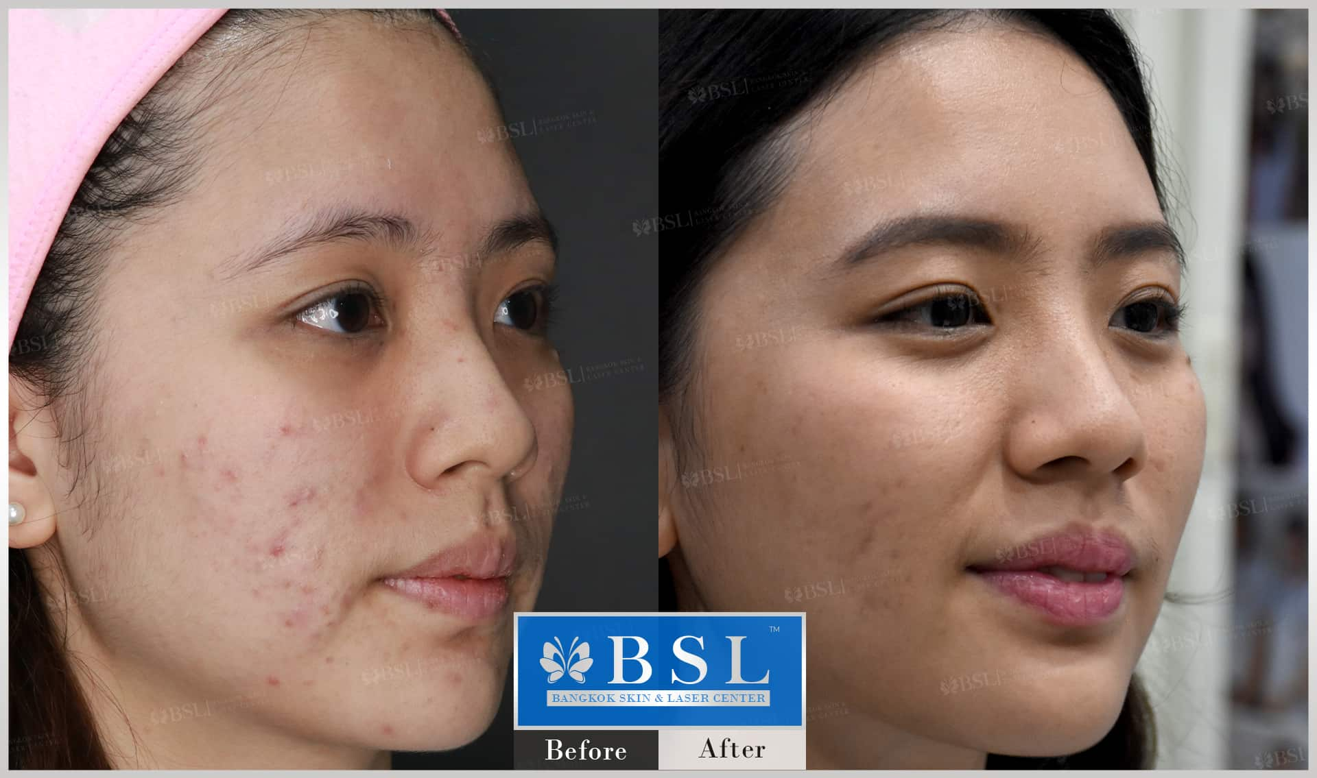 before-after-results-acne-071