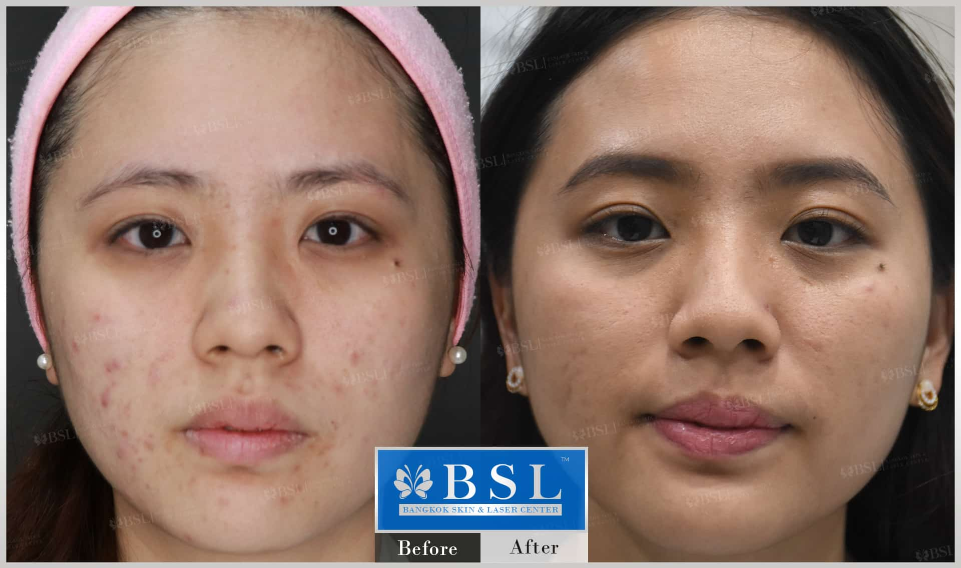 before-after-results-acne-072