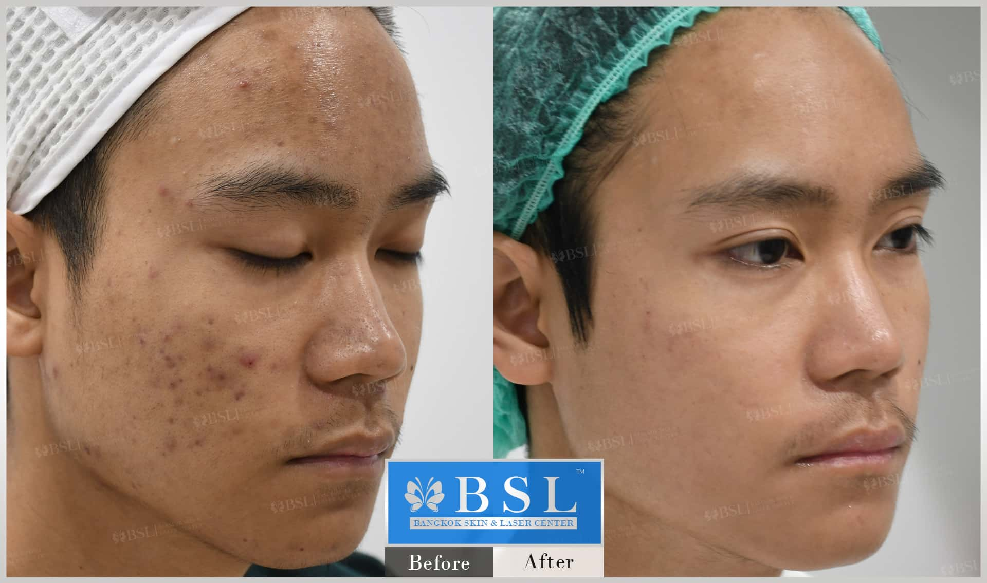 before-after-results-acne-074
