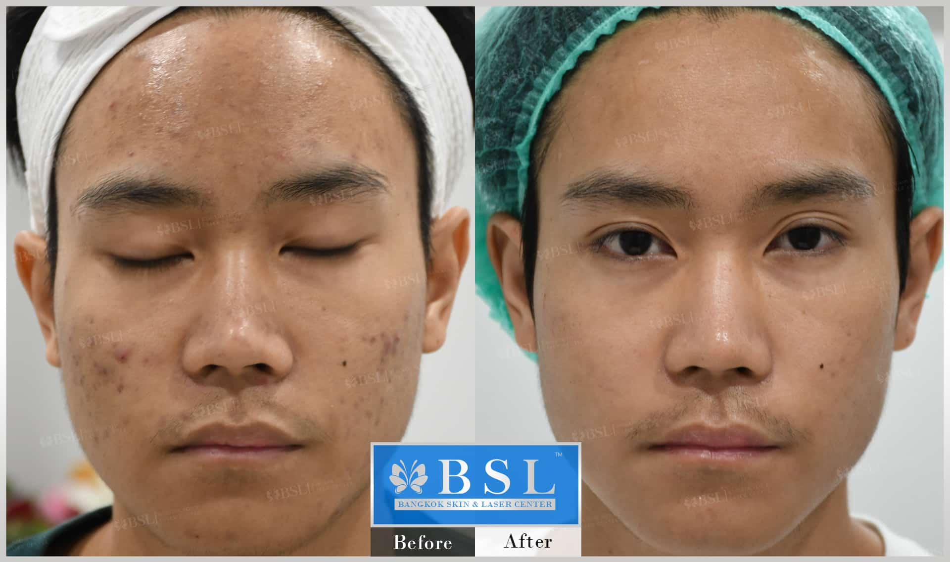 before-after-results-acne-075