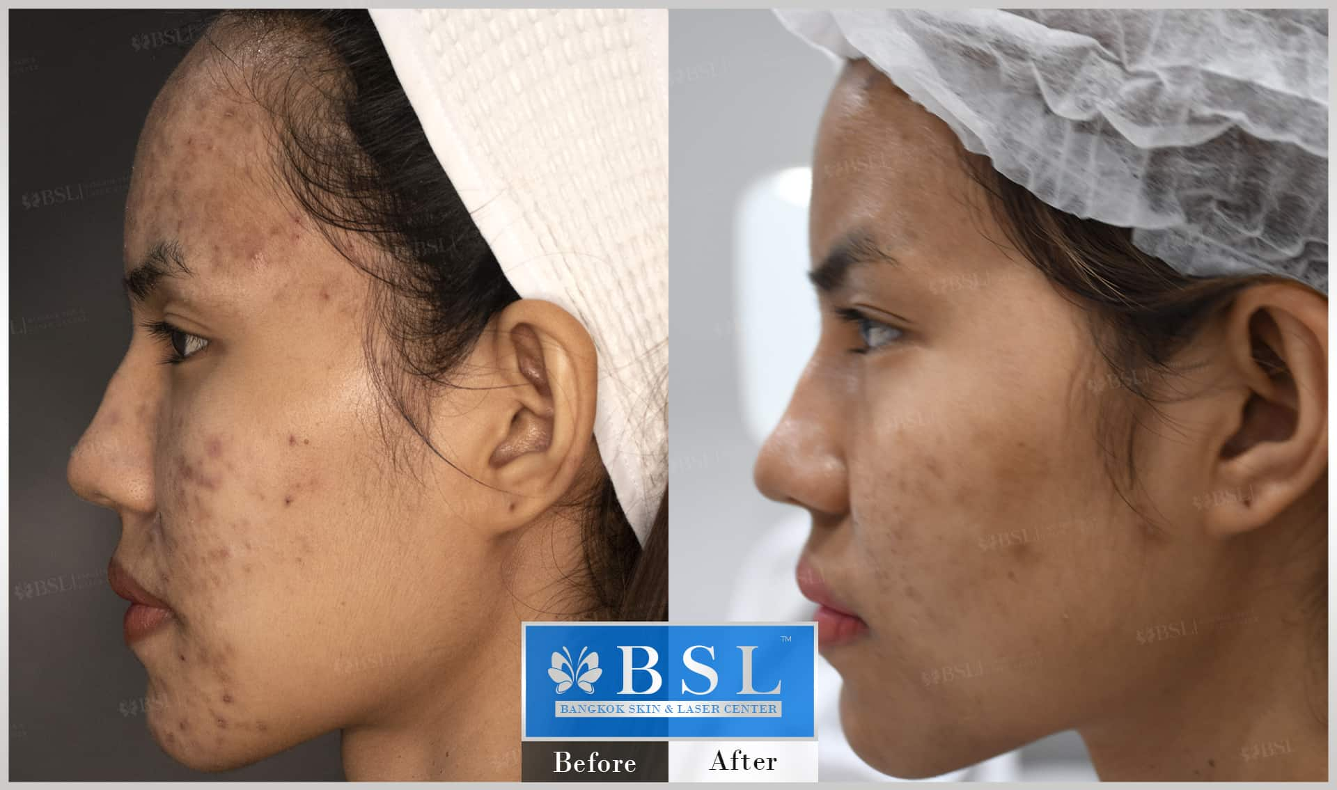 before-after-results-acne-076