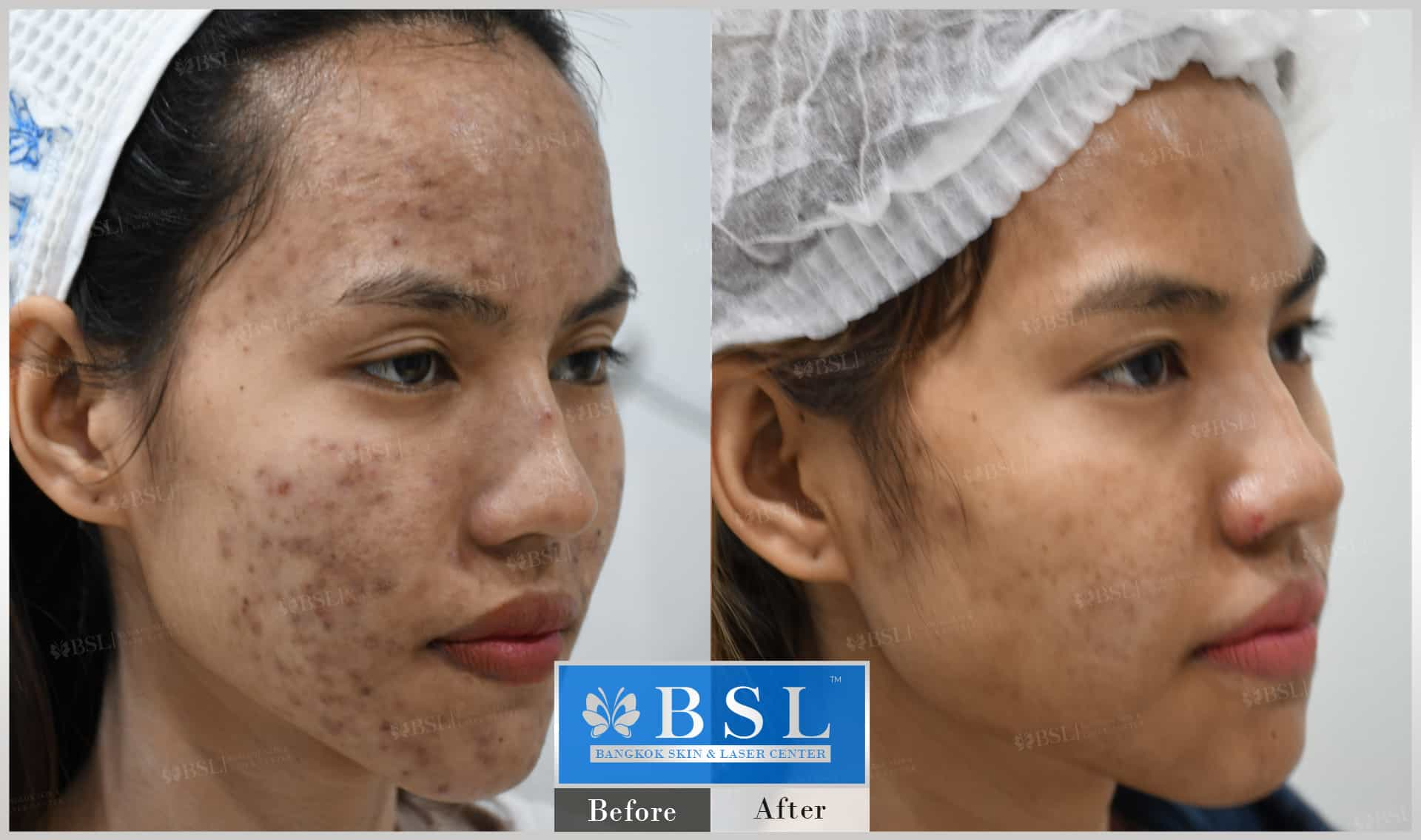 before-after-results-acne-077