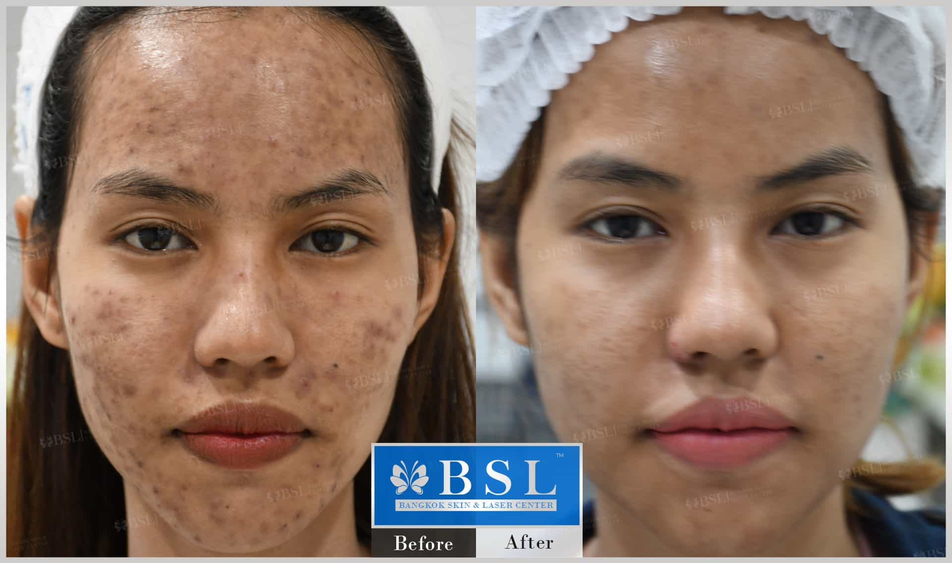 before-after-results-acne-078