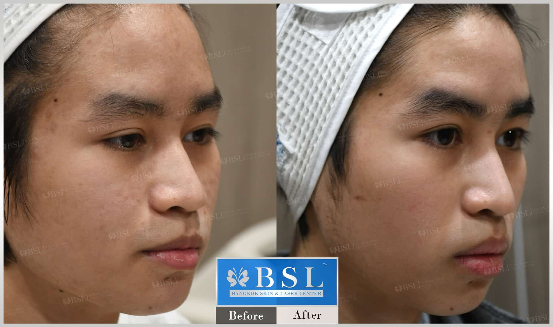 before-after-results-acne-080