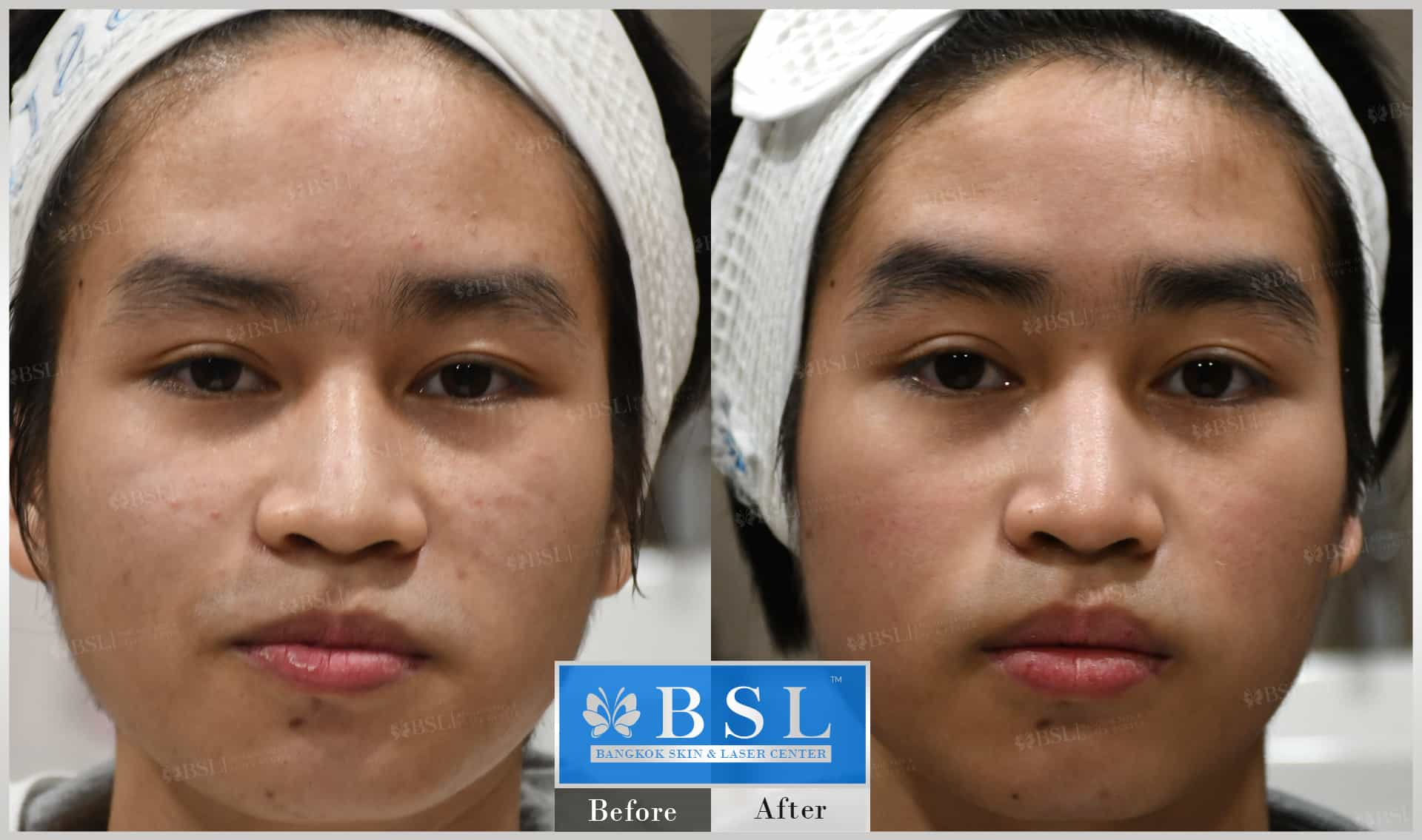 before-after-results-acne-081