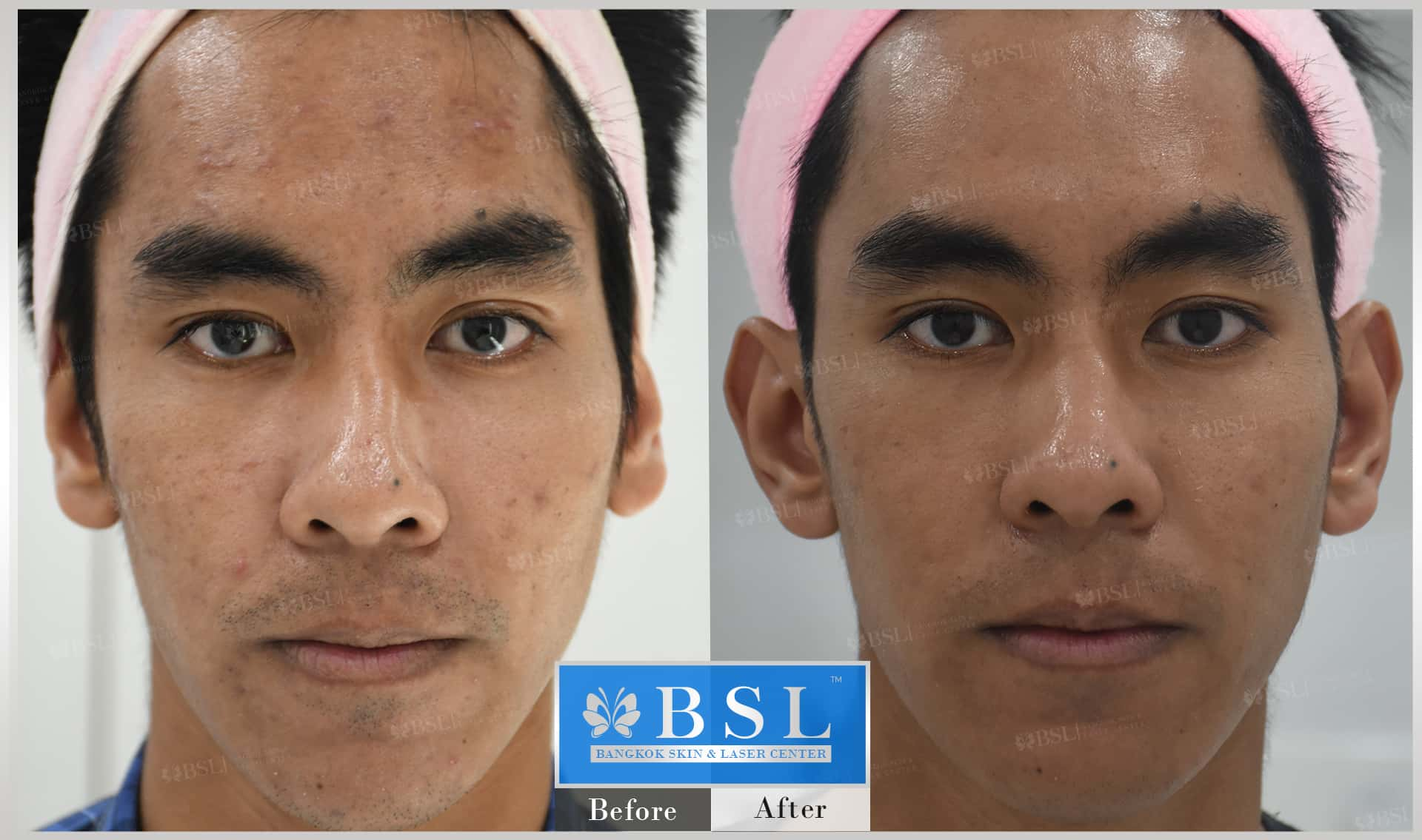 before-after-results-acne-082