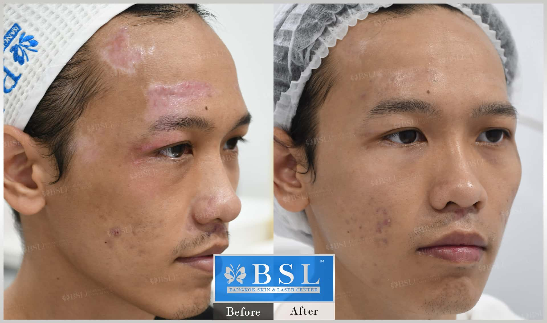before-after-results-acne-083