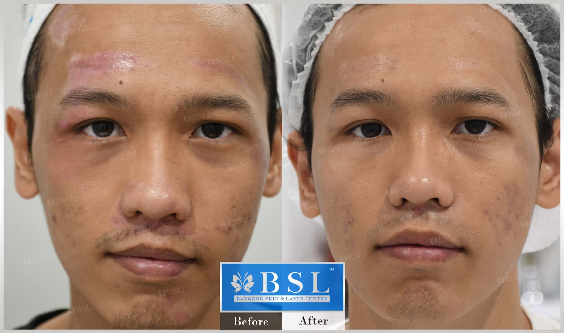 before-after-results-acne-084