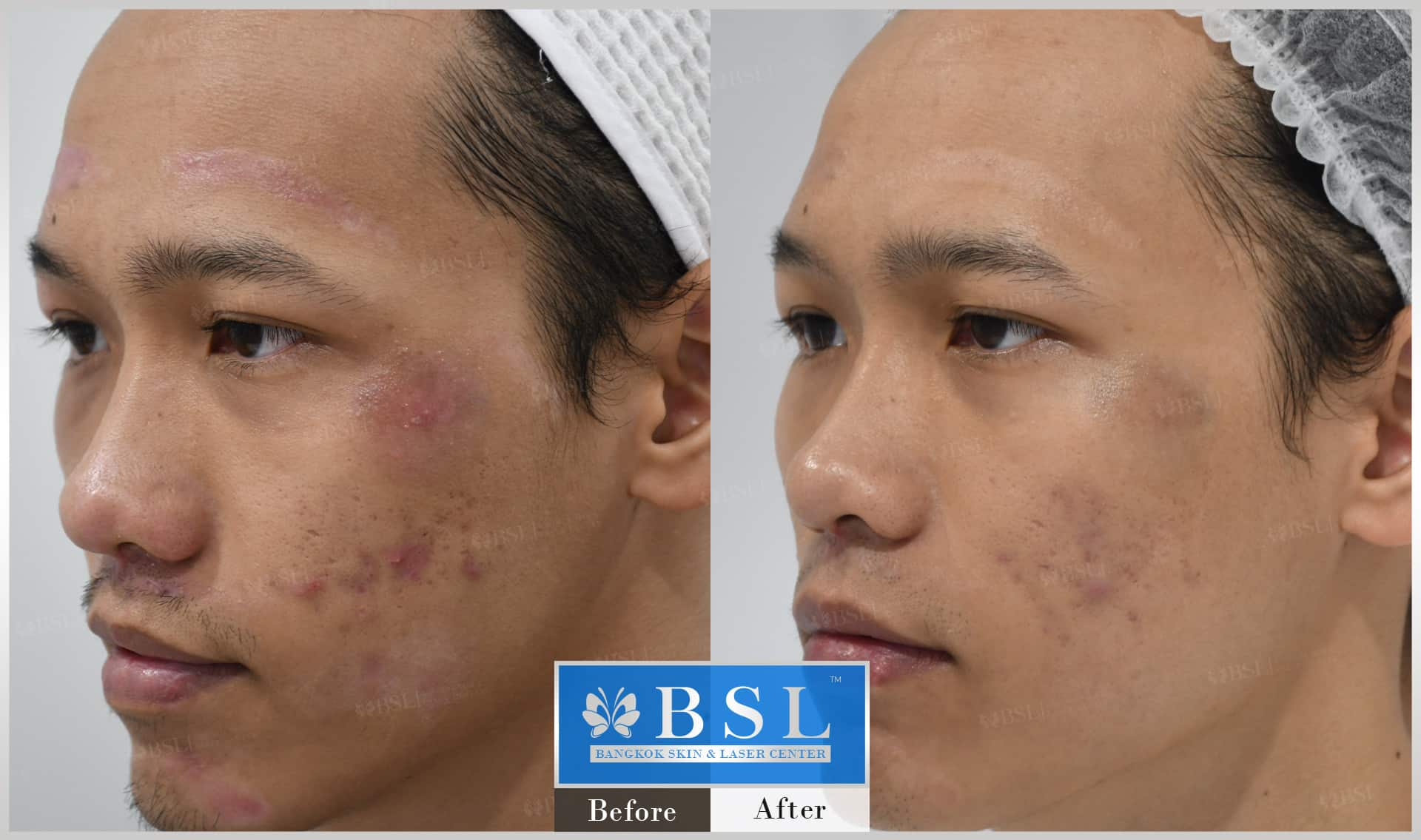 before-after-results-acne-085