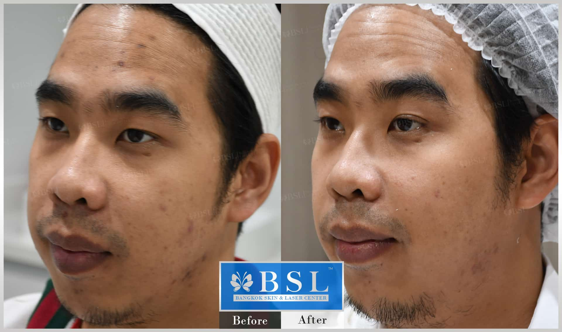 before-after-results-acne-086