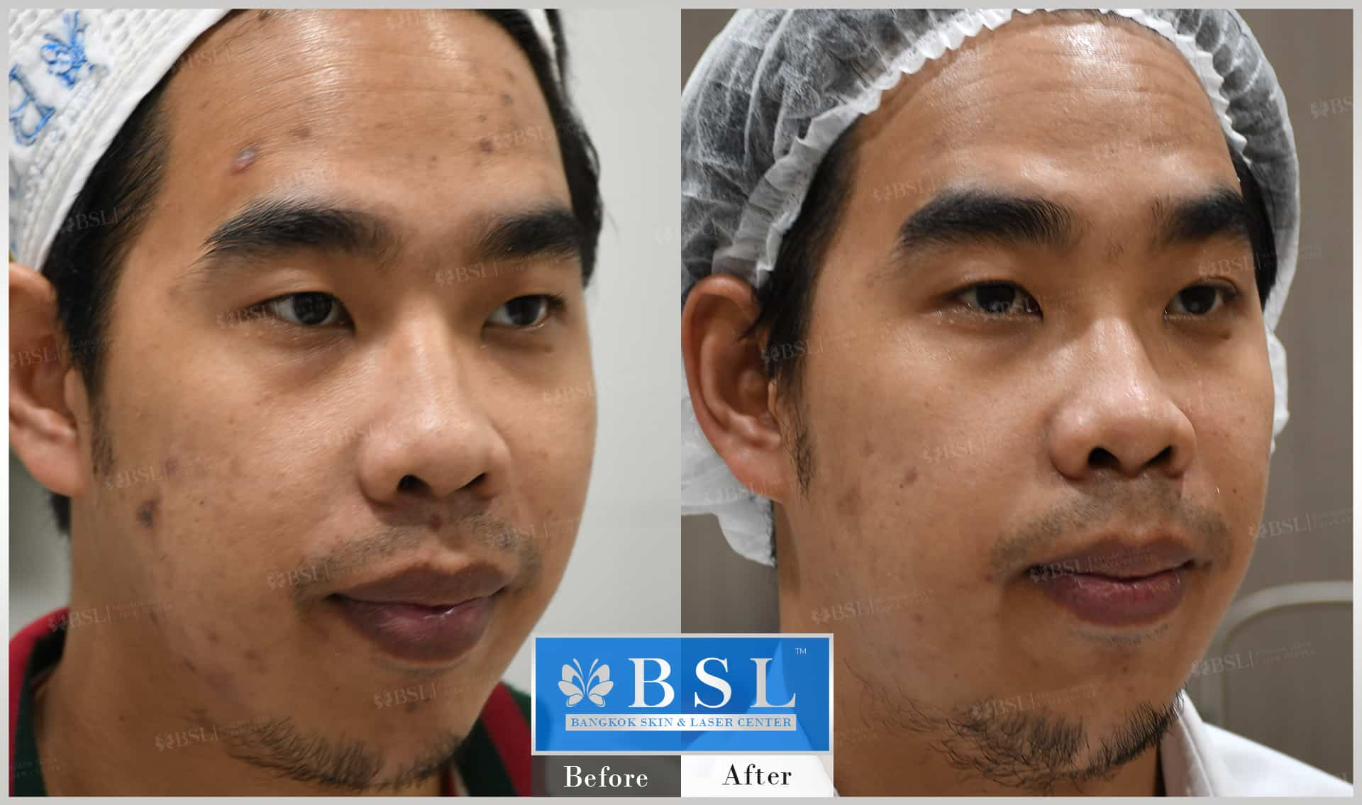 before-after-results-acne-087