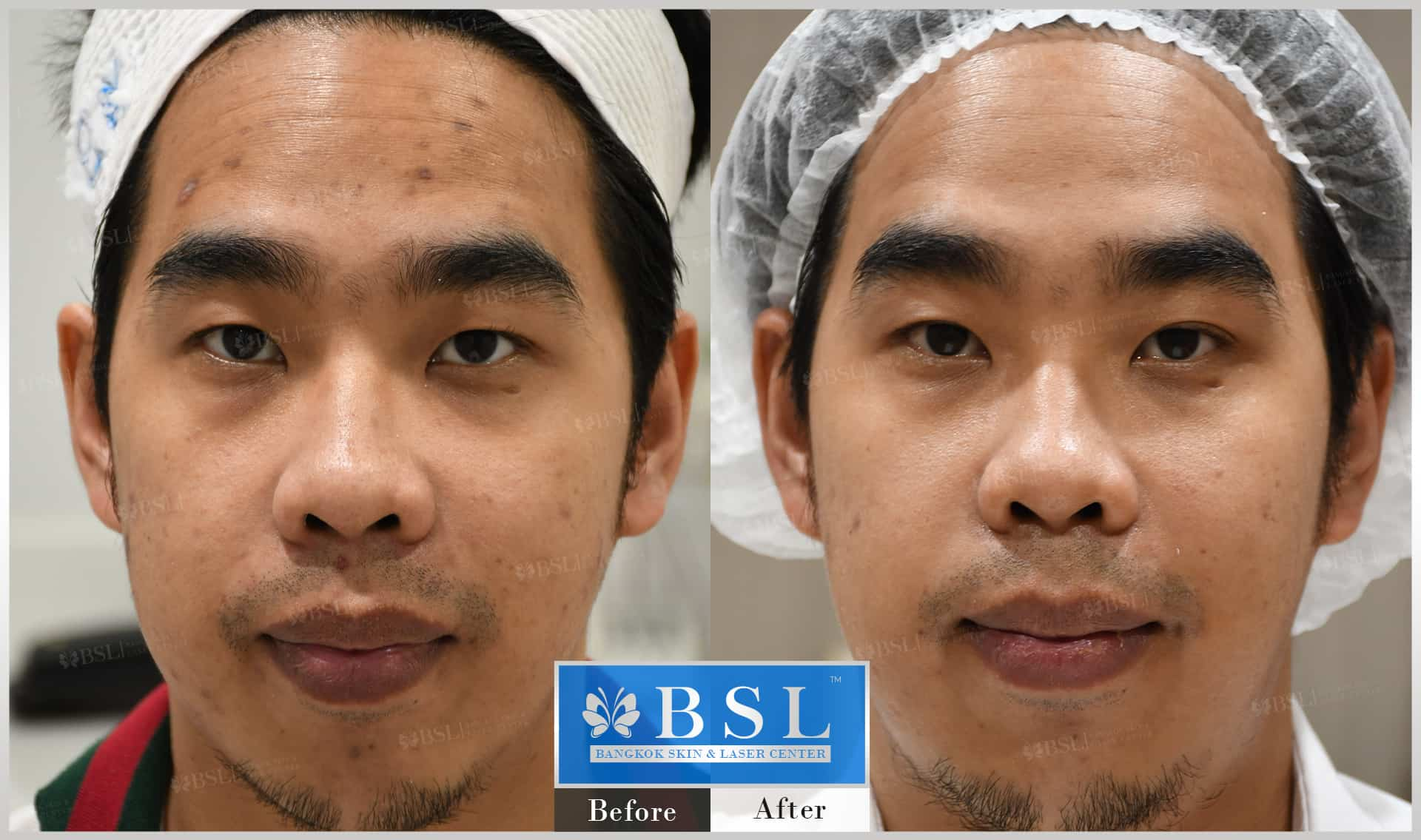 before-after-results-acne-088