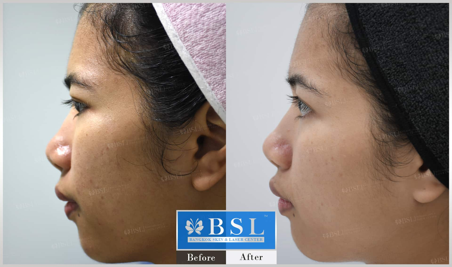 before-after-results-acne-089