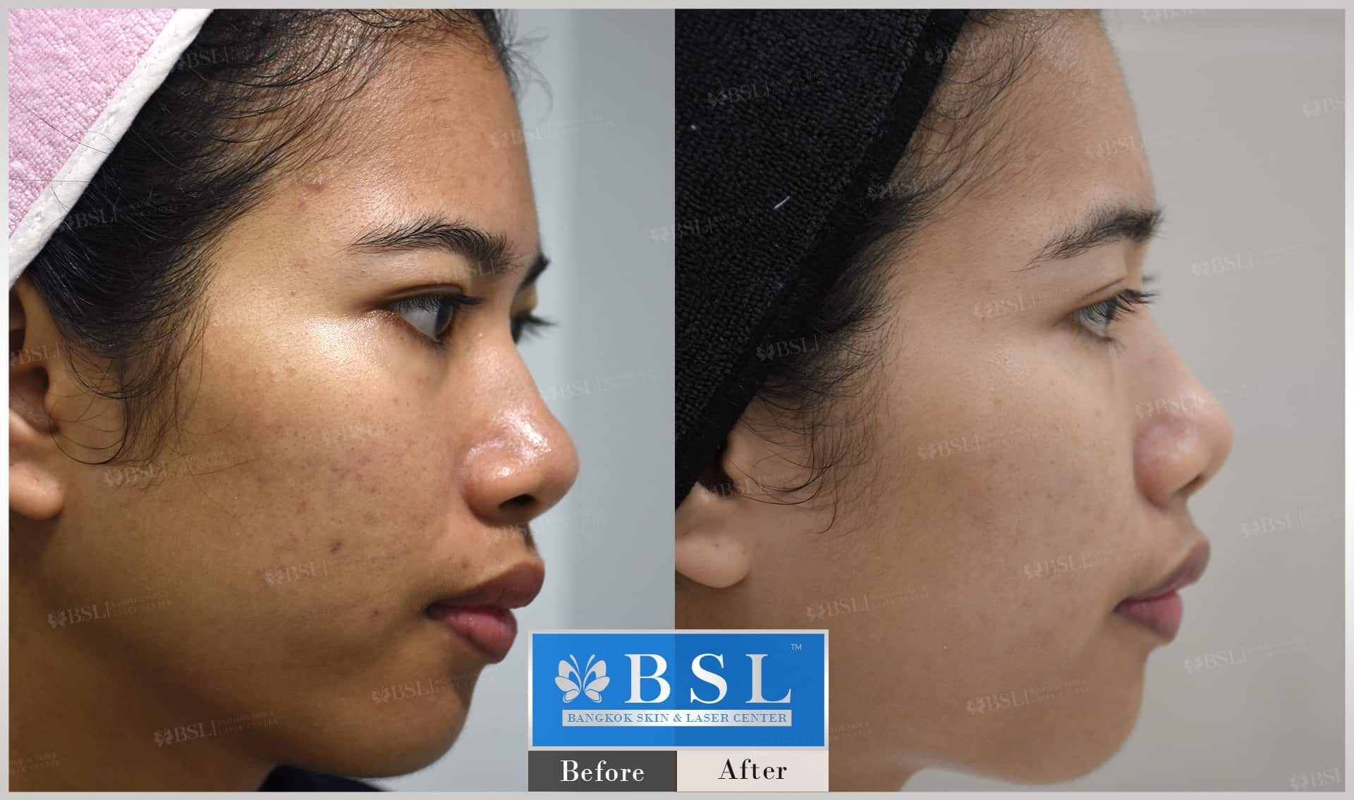 before-after-results-acne-090