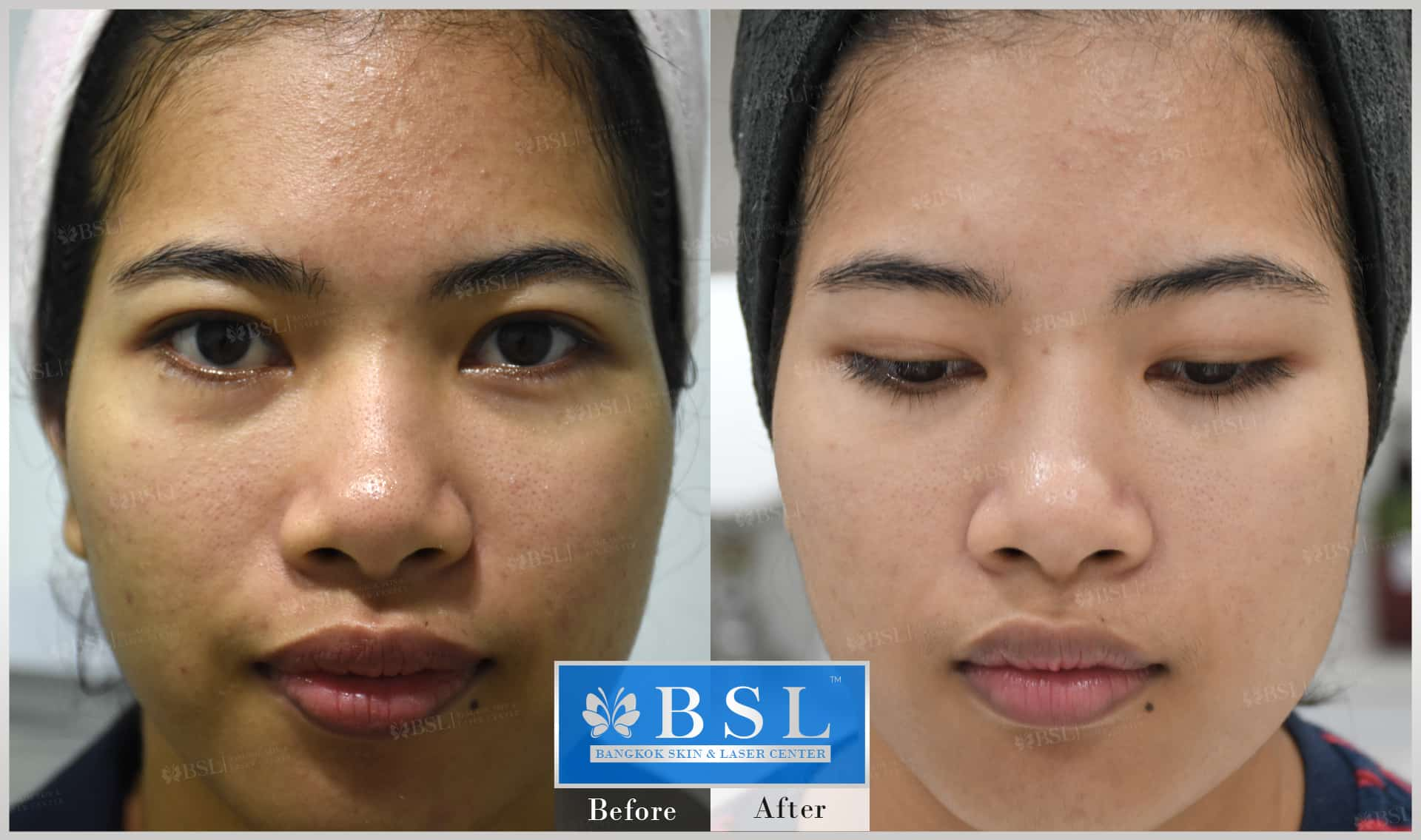 before-after-results-acne-091