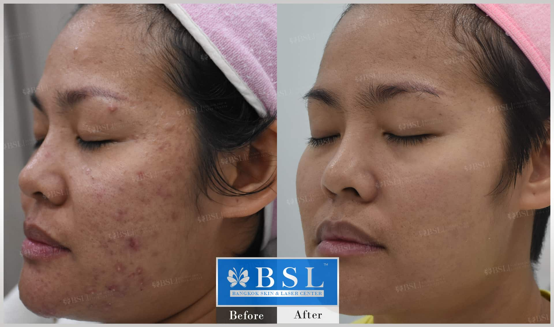 before-after-results-acne-092