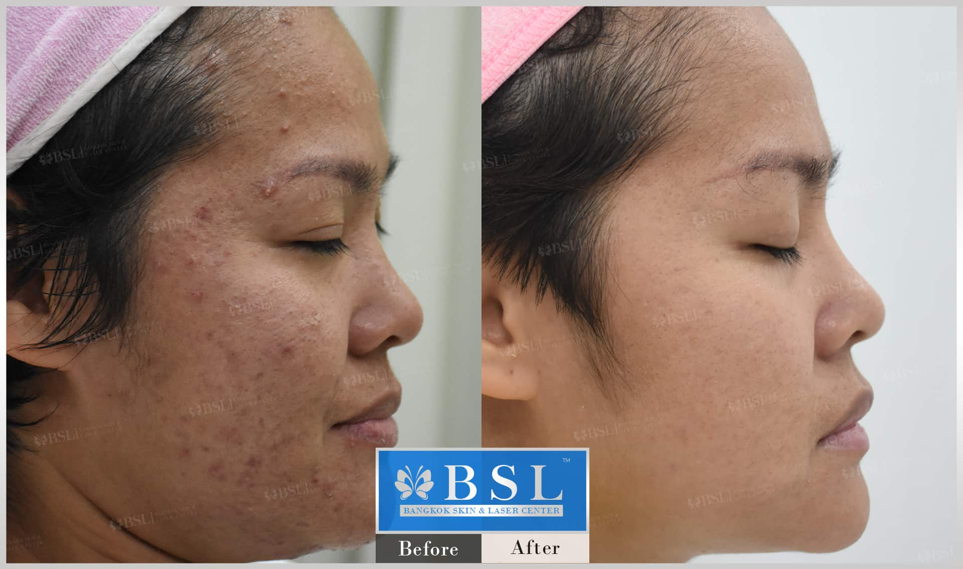 before-after-results-acne-093