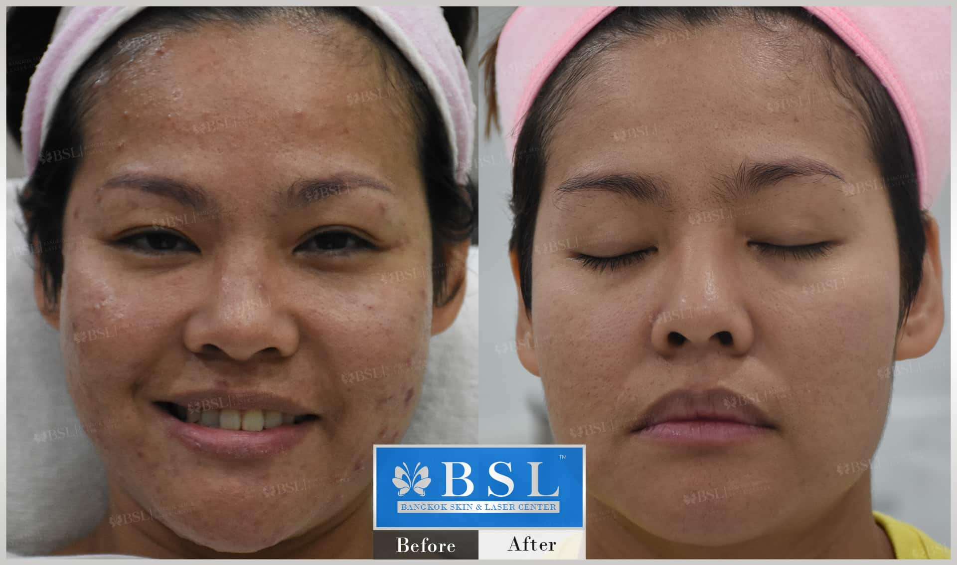 before-after-results-acne-094
