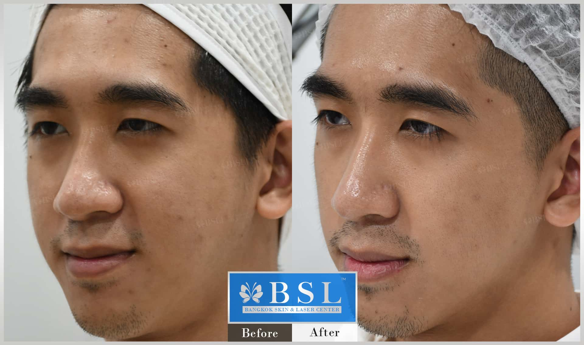 before-after-results-acne-095