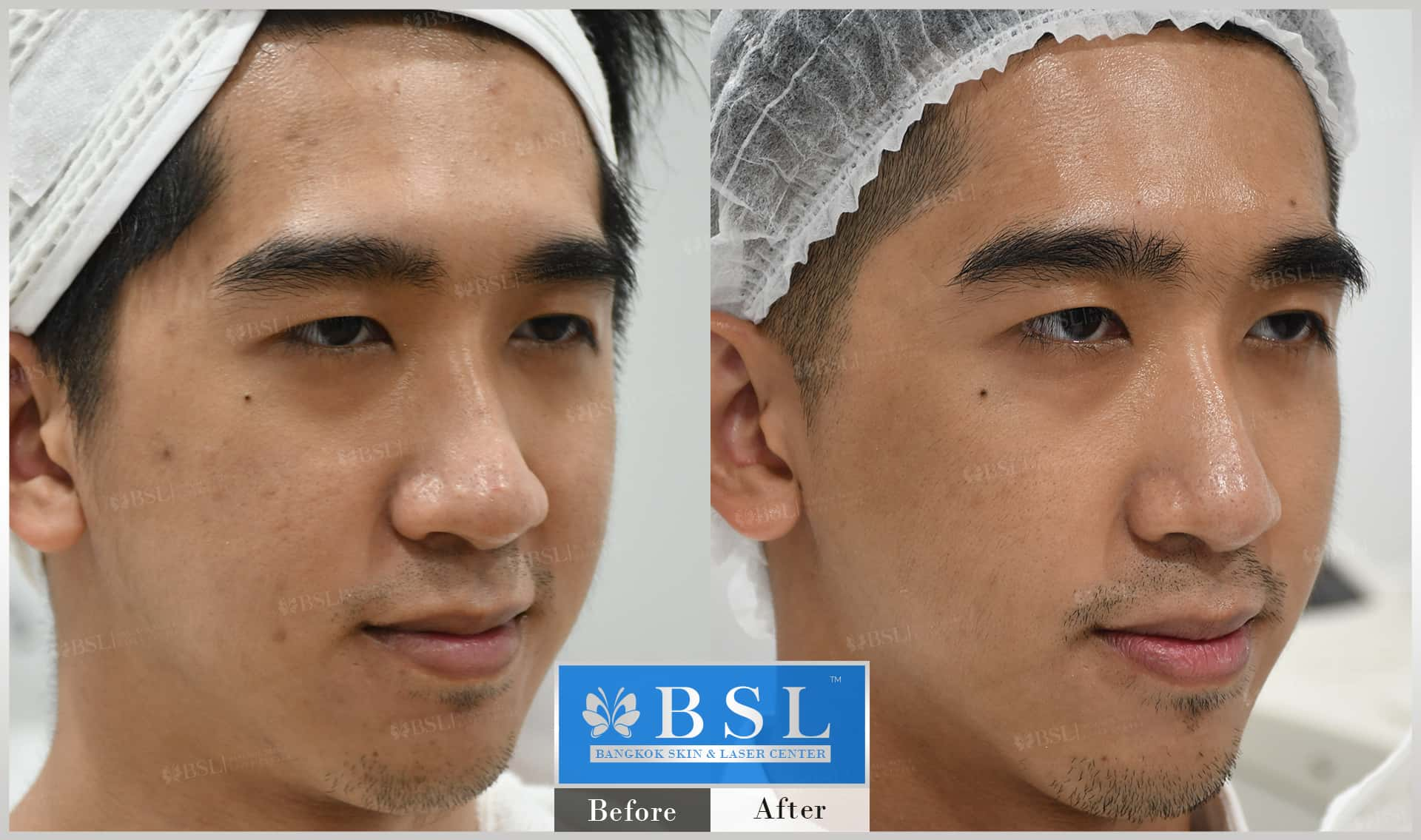 before-after-results-acne-096