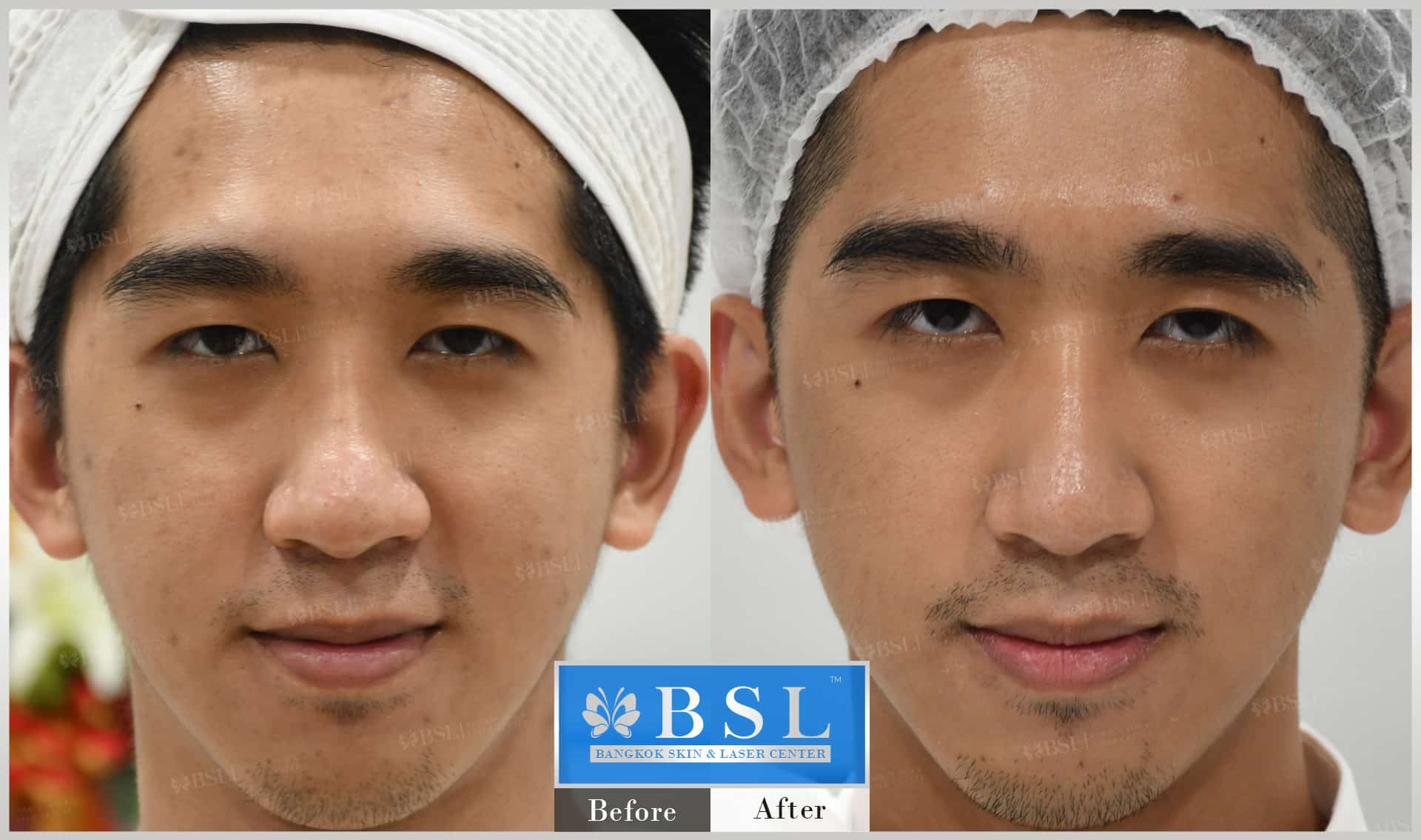 before-after-results-acne-097