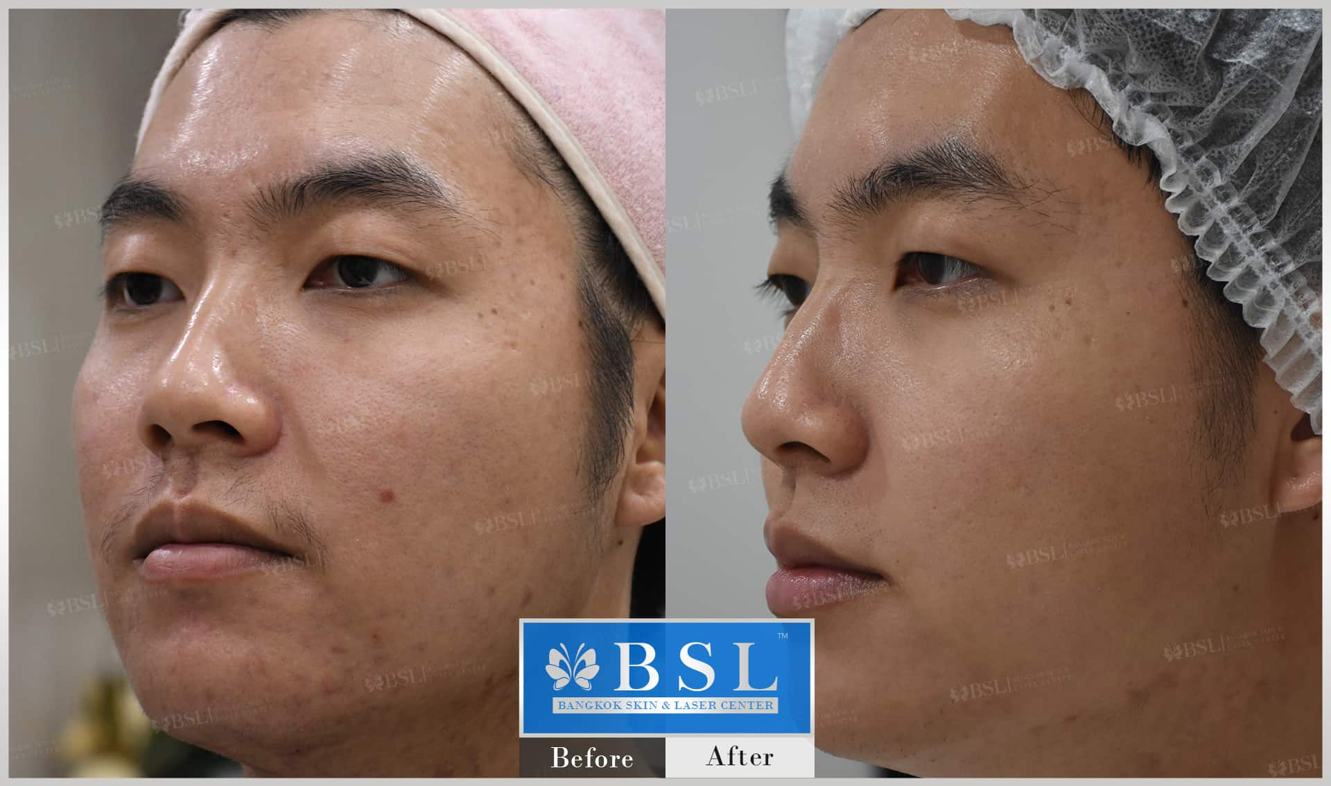 before-after-results-acne-098