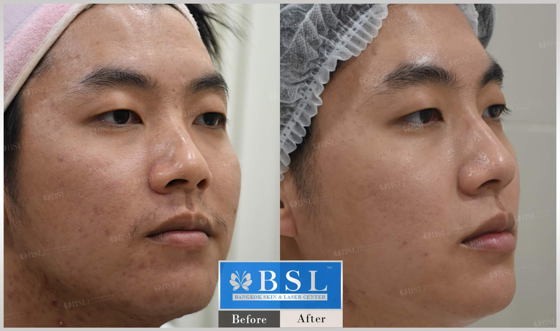 before-after-results-acne-099