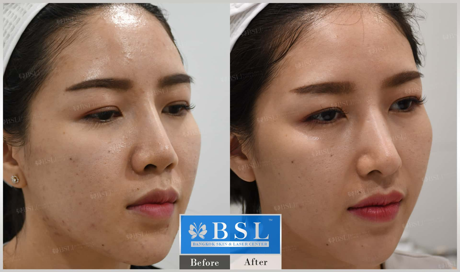 before-after-results-acne-102