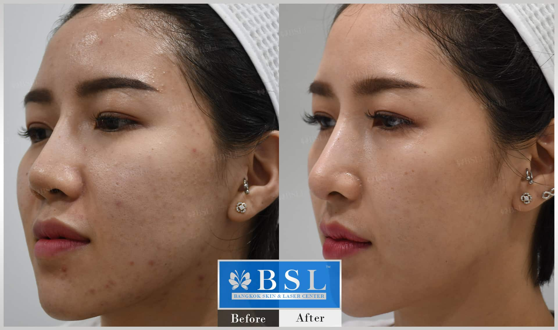 before-after-results-acne-104