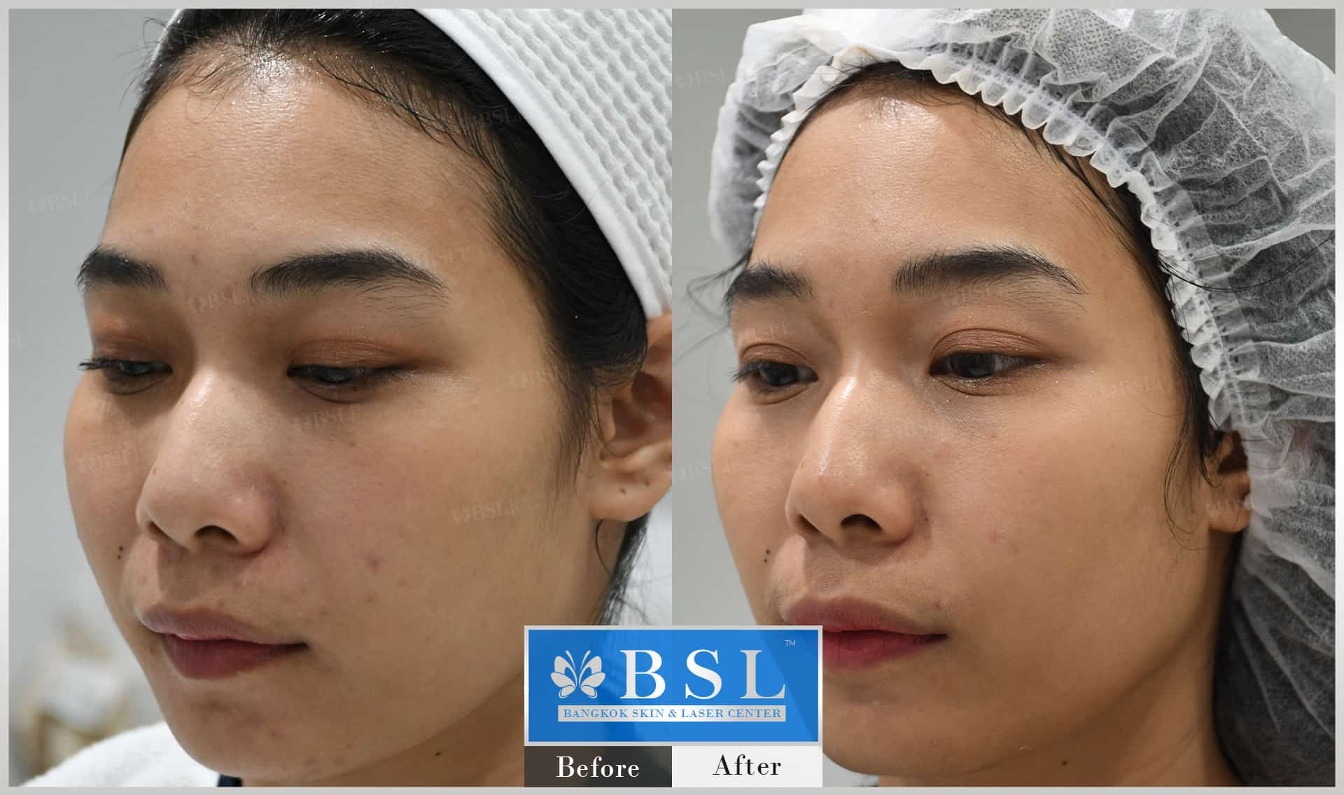 before-after-results-acne-105