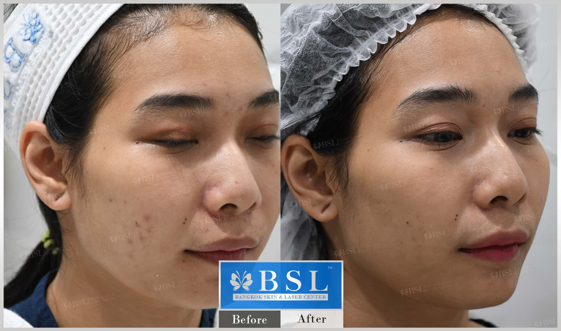 before-after-results-acne-106