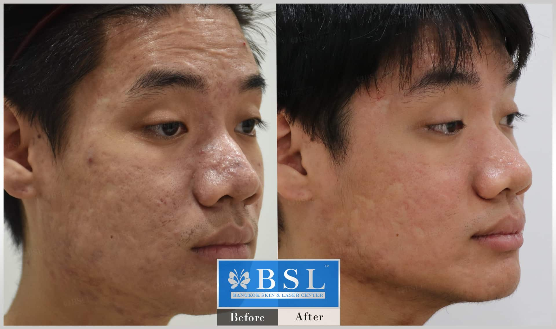 before-after-results-acne-109