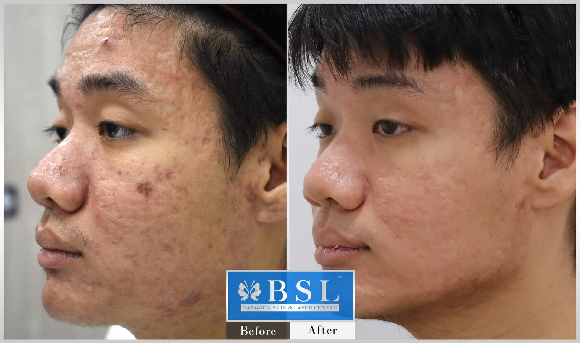 before-after-results-acne-110