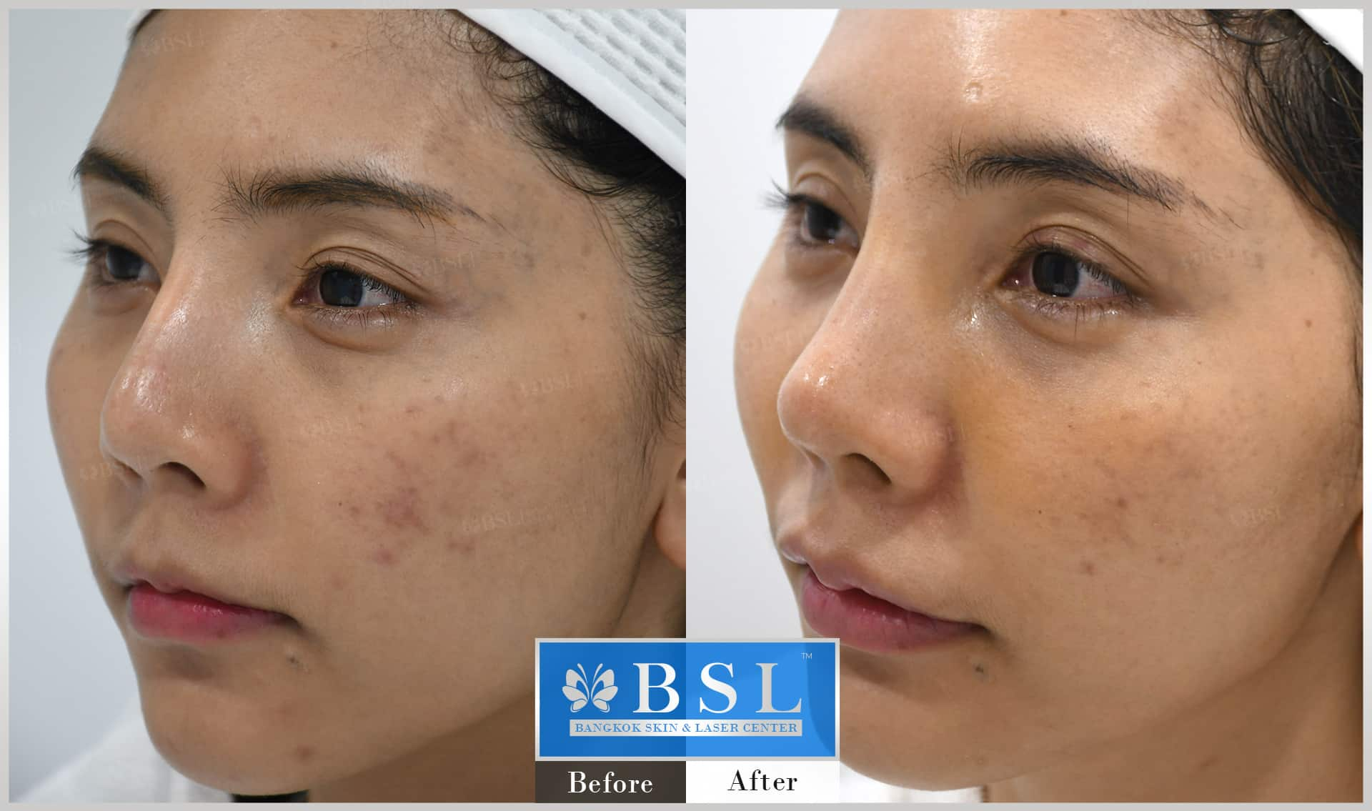 before-after-results-acne-112