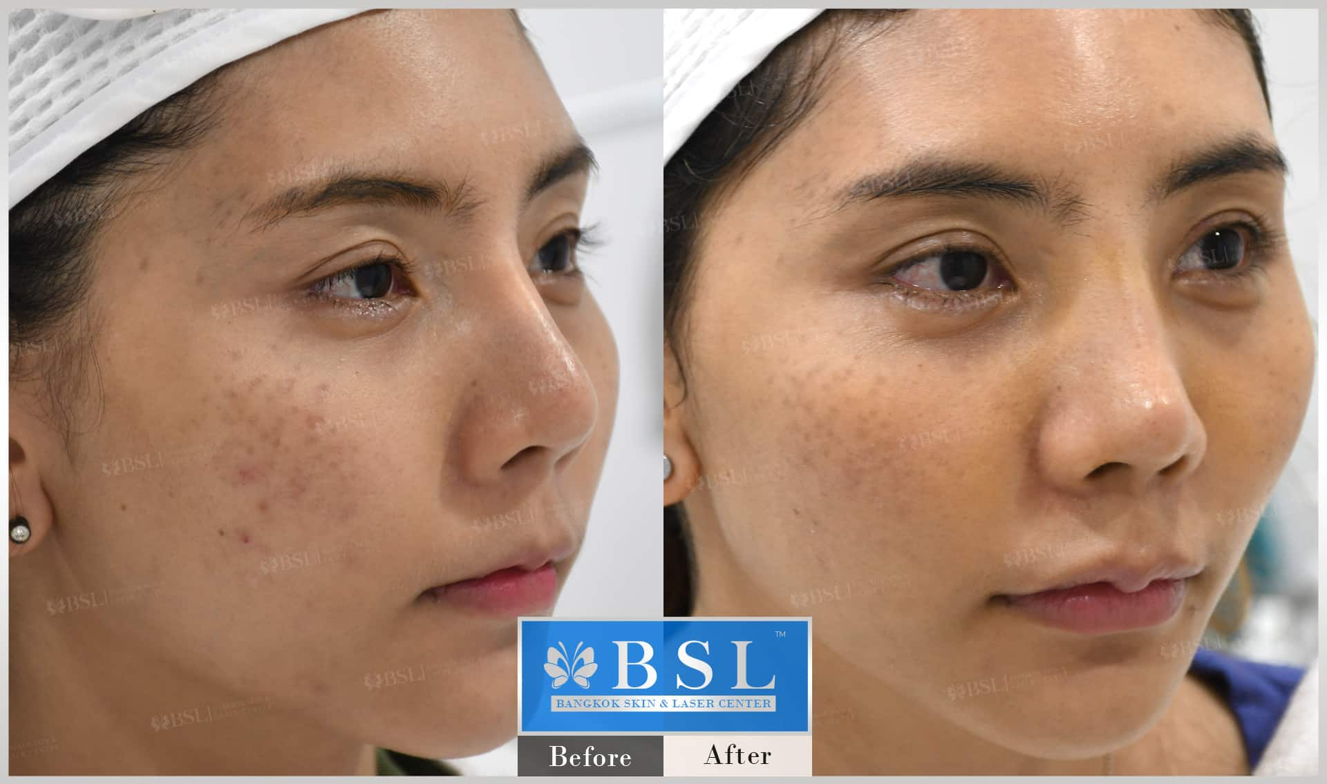 before-after-results-acne-113