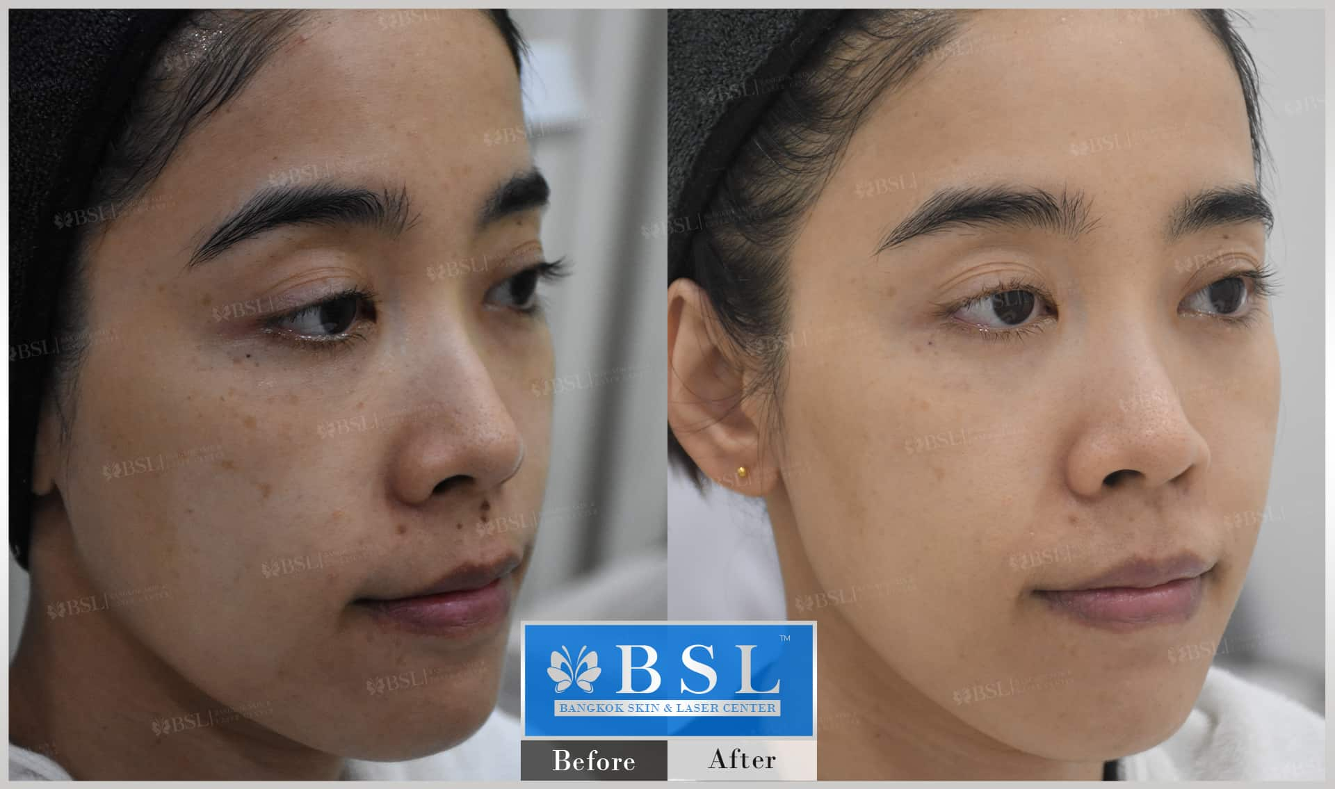 before-after-results-acne-116