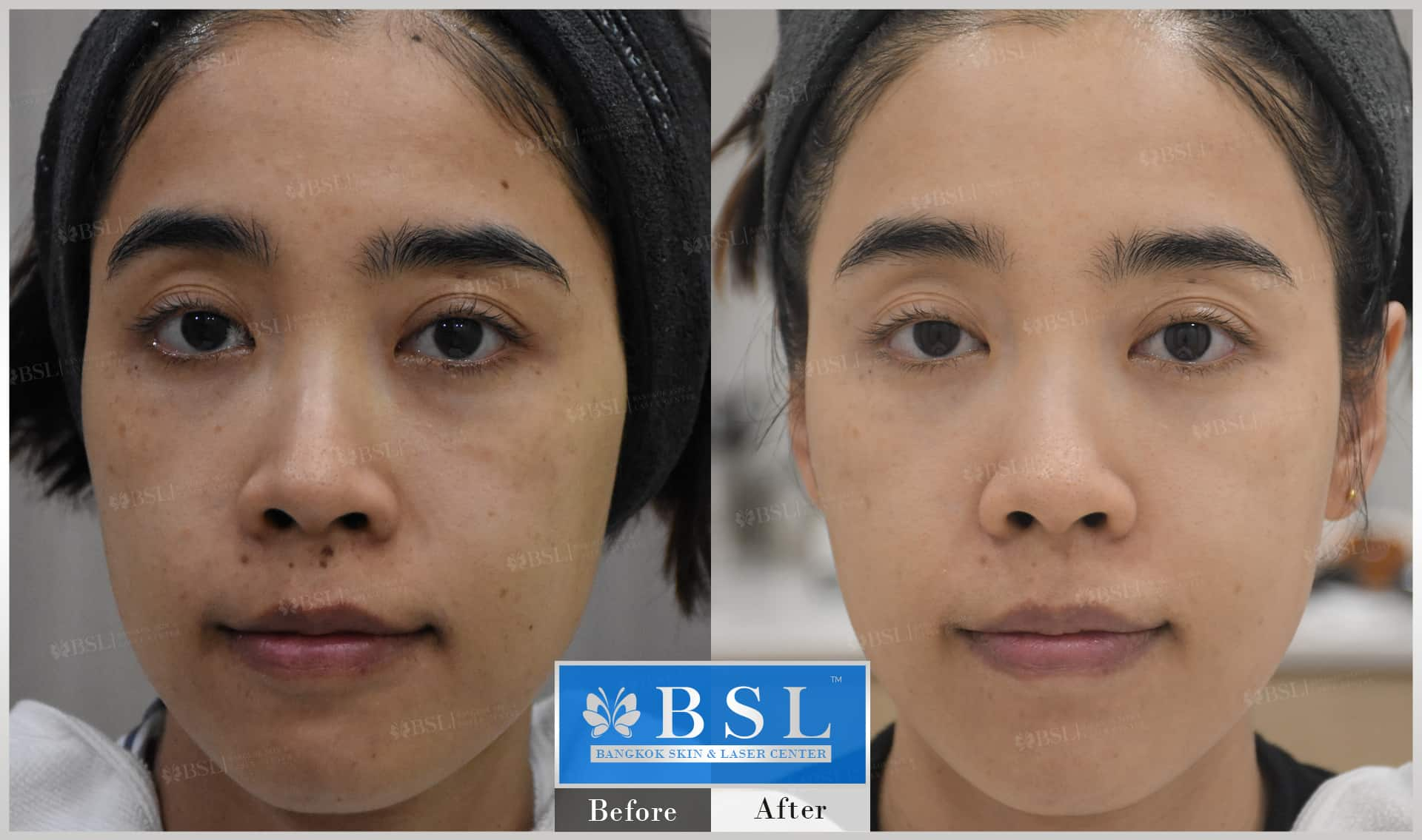 before-after-results-acne-117
