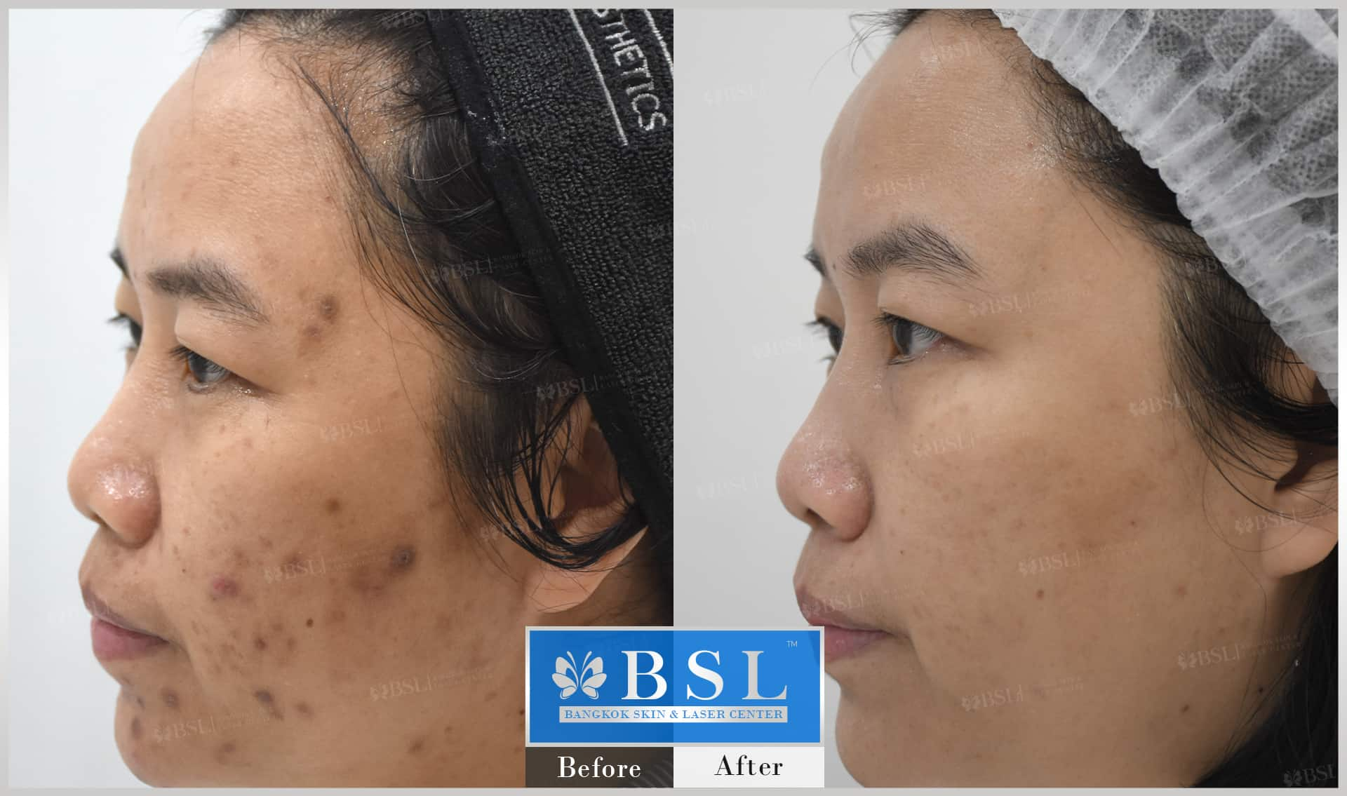before-after-results-acne-118