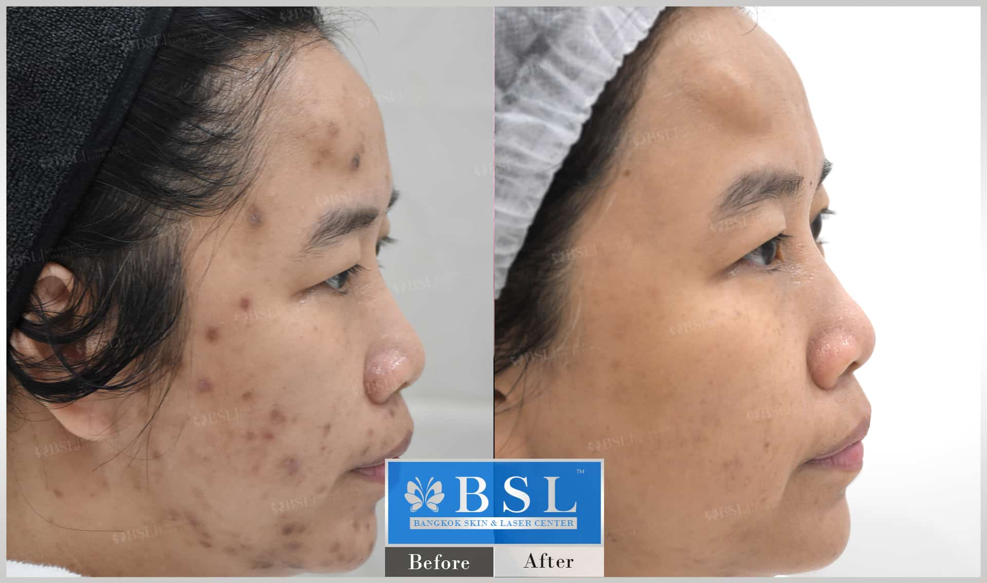 before-after-results-acne-119