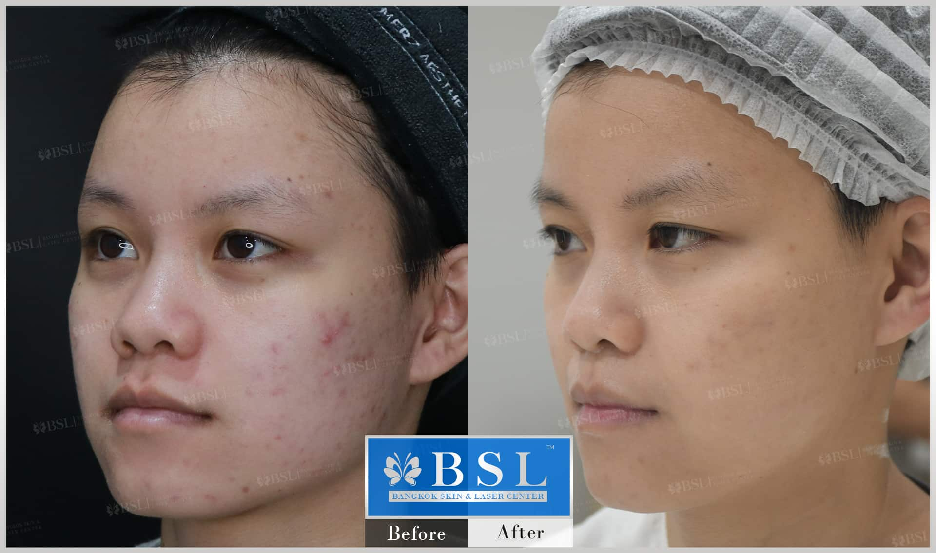 before-after-results-acne-121