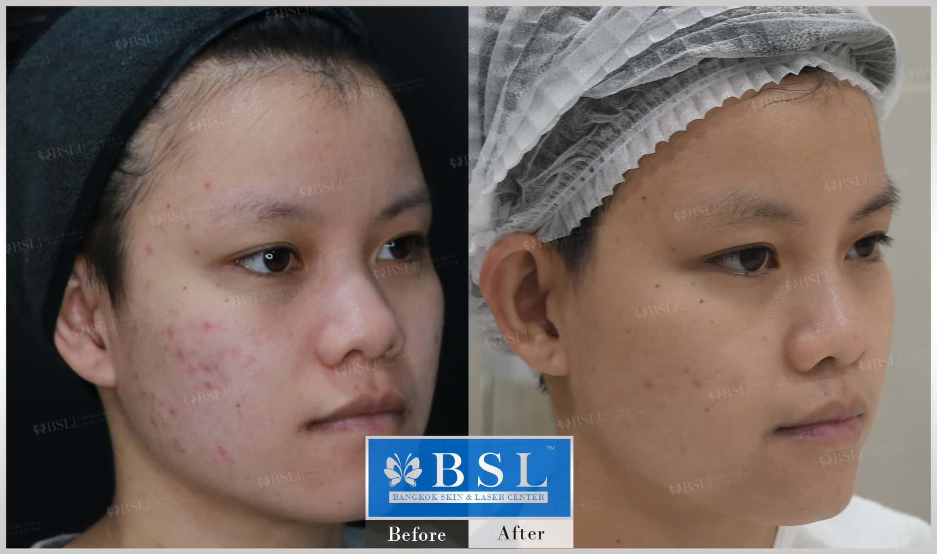 before-after-results-acne-122