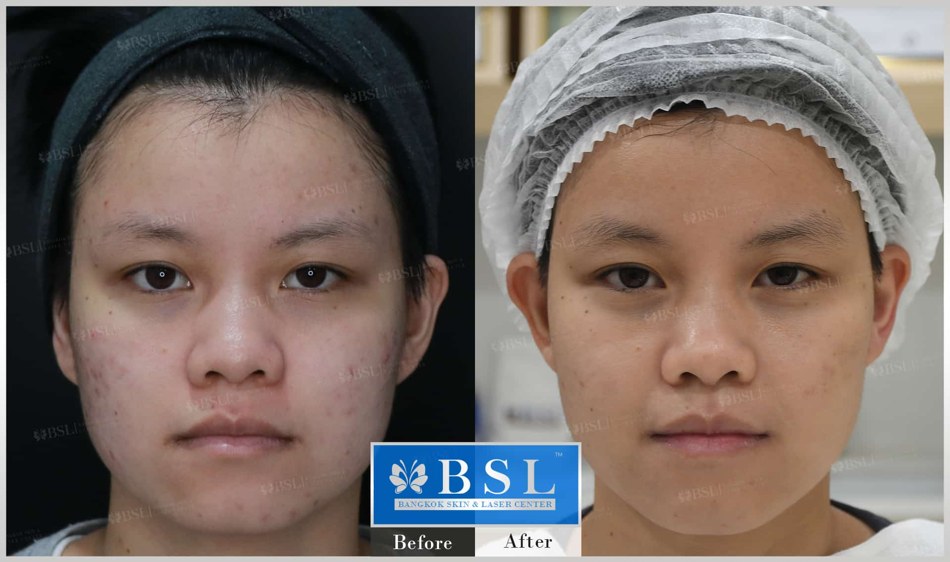 before-after-results-acne-123